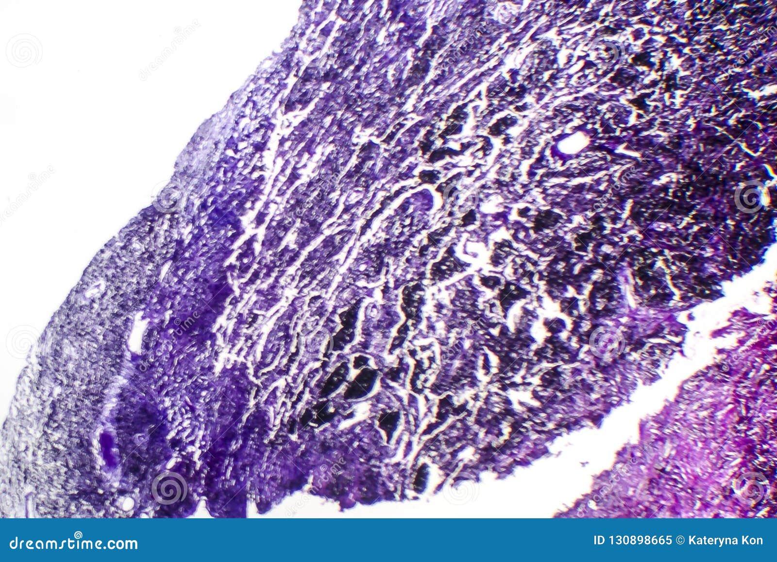 Histopathology av silikons, ljus micrograph