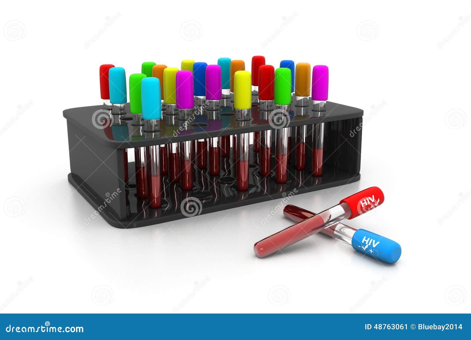 HIV bloedonderzoek