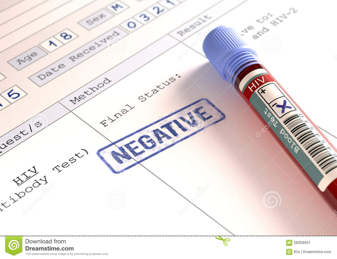Hiv negative stock image image of infected medical - Test hiv periodo finestra ...