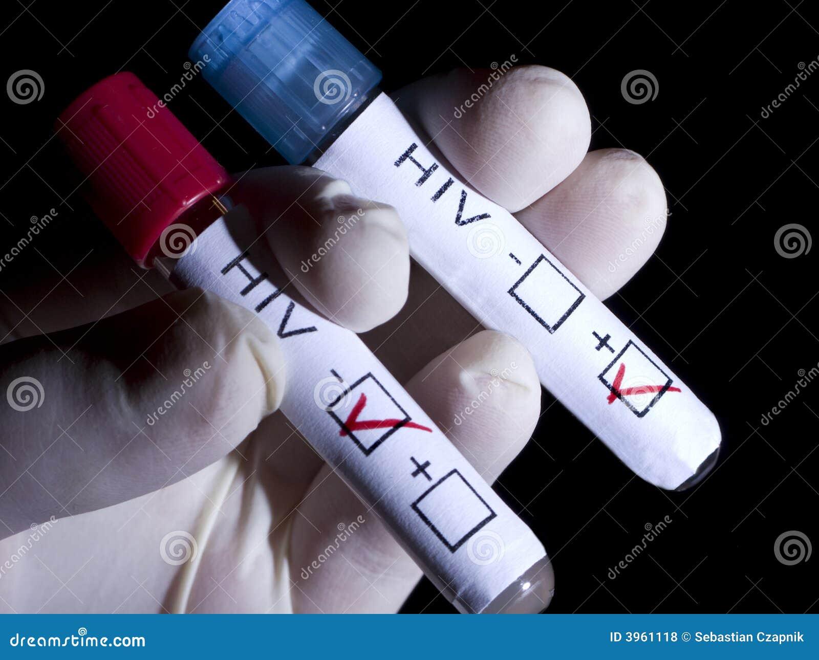 HIV-POSITIV und negativ