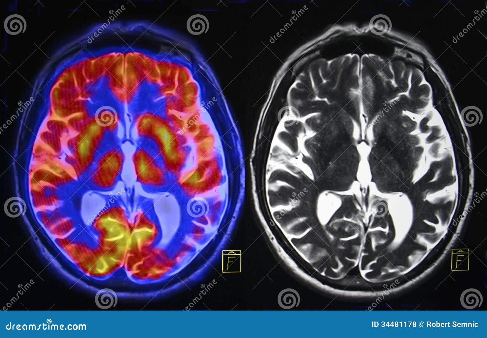 Hjärnbildläsning