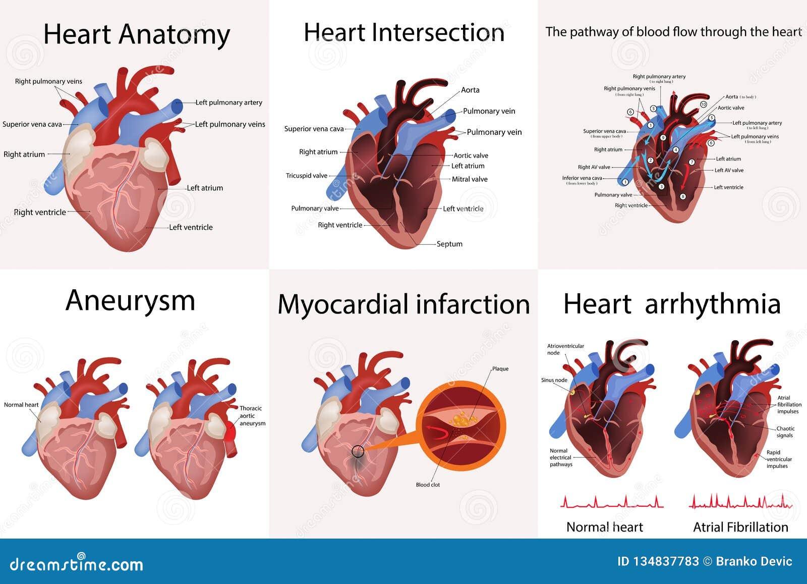 Hjärtaanatomi och typer av hjärtsjukdomvektorillustrationen