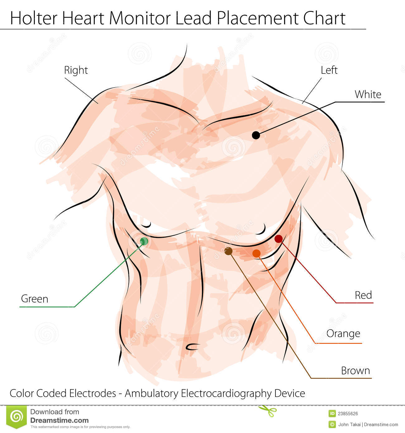 Holter Heart Monitor Lead Placement Chart Stock Vector