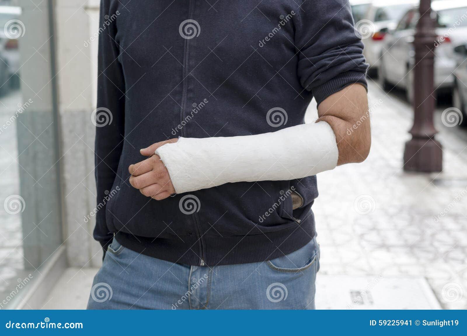 Hombre con su brazo quebrado Brazo en molde