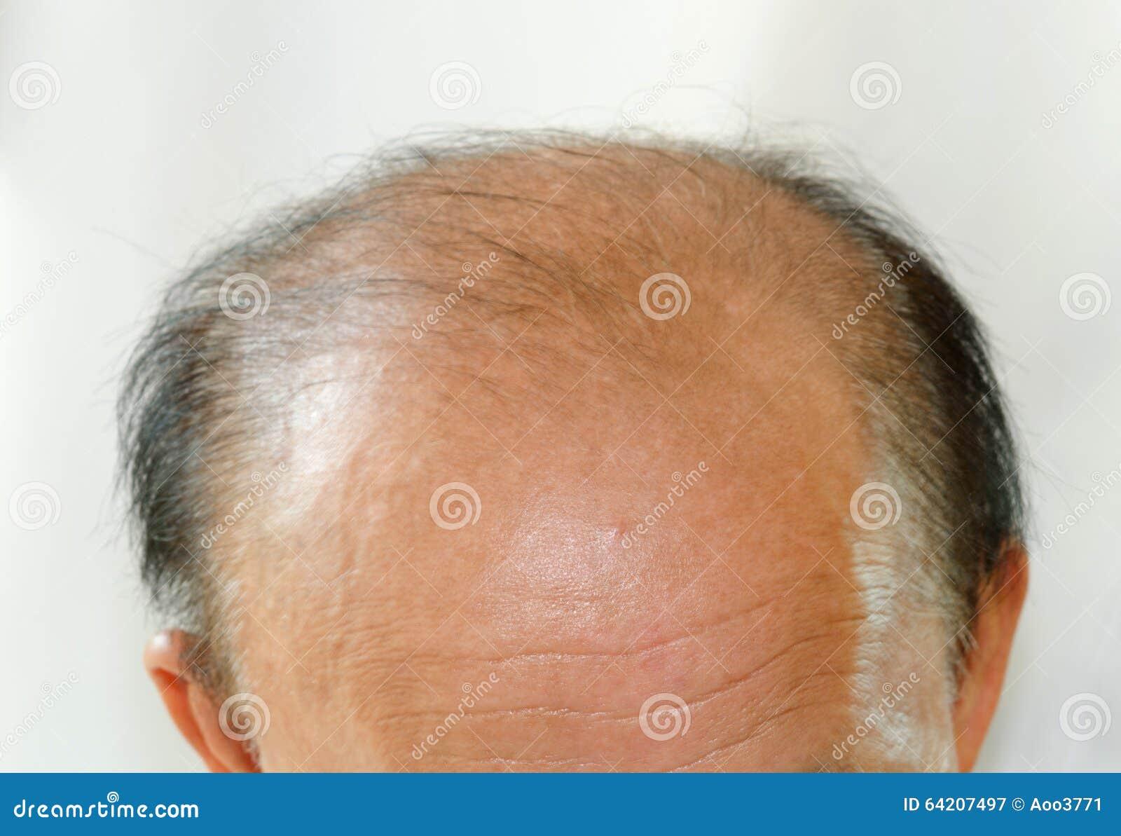 Hombre de la cabeza calva