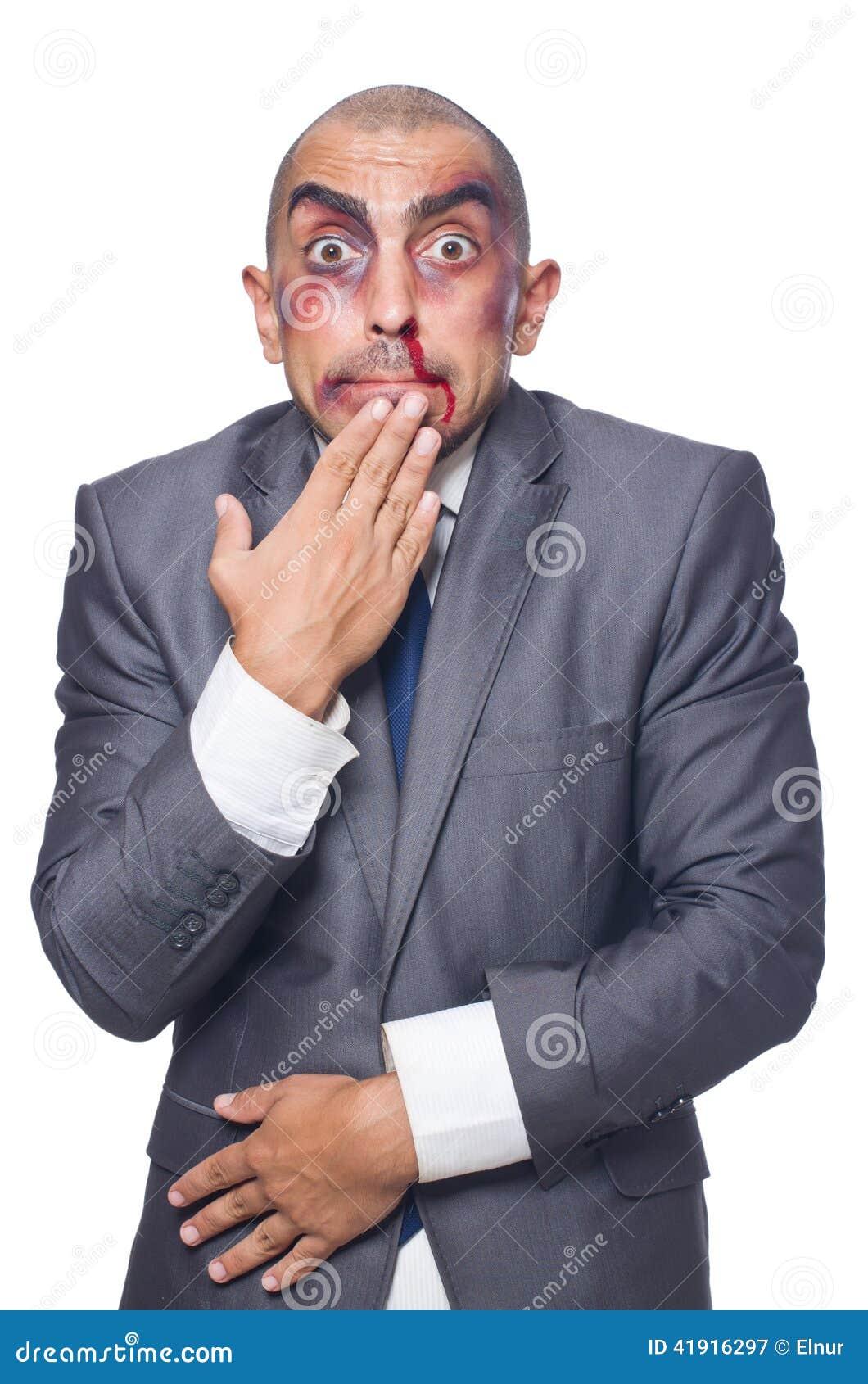 Hombre de negocios gravemente batido aislado