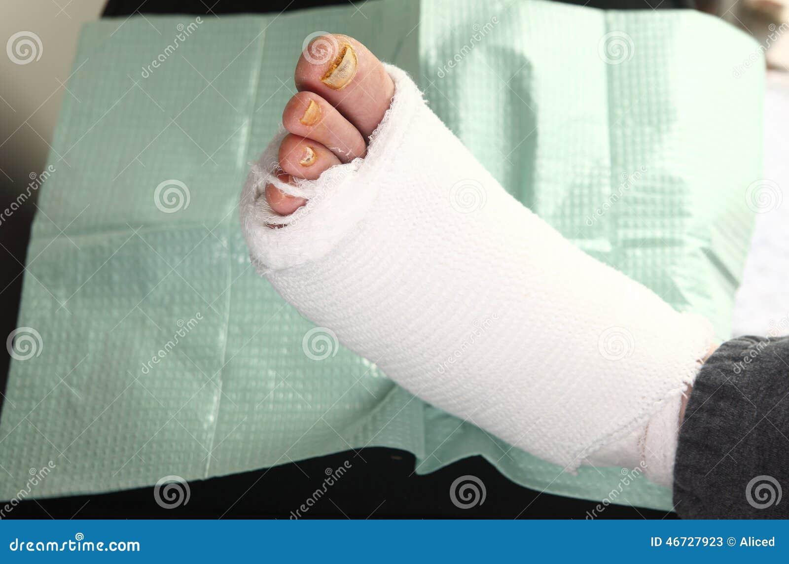 Hombre diabético con infecciones del pie