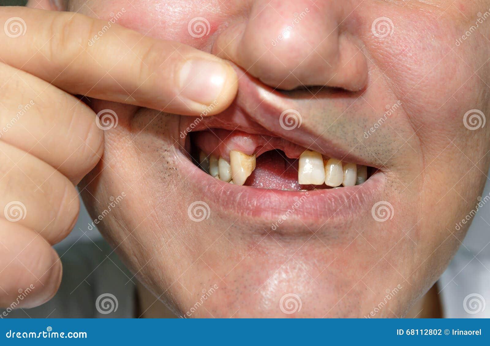 Hombre que muestra la boca sin los dientes