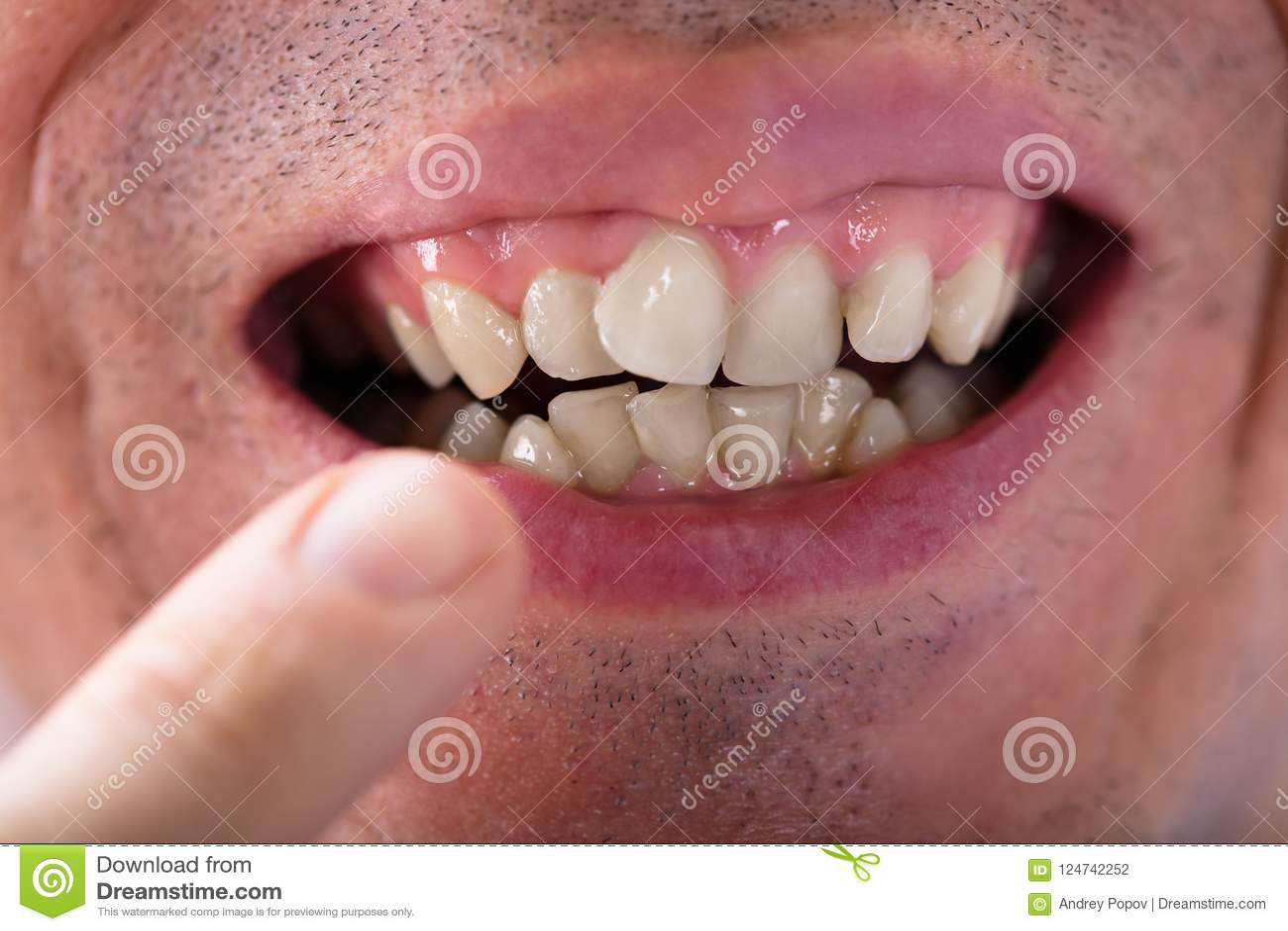 Hombre que muestra sus dientes