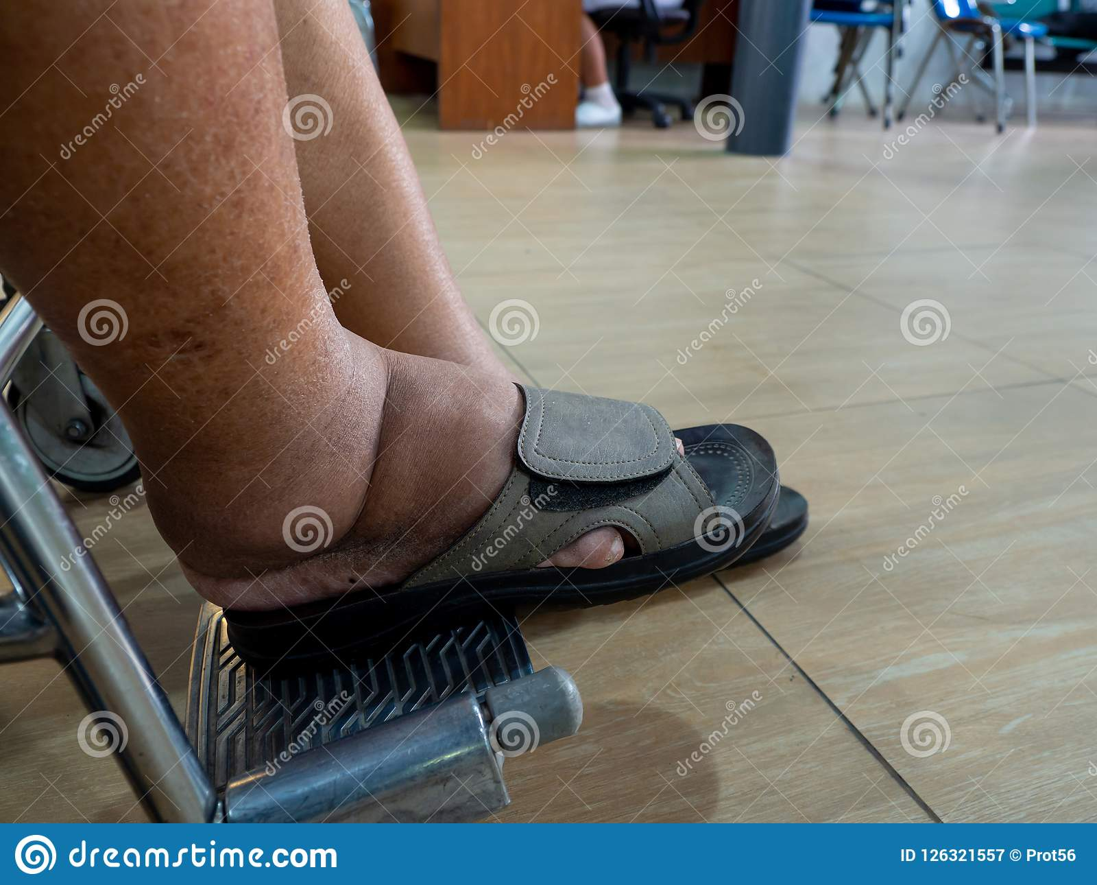 diabetes pies hinchados riñón