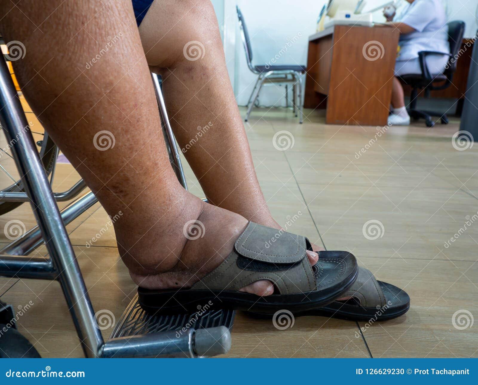 zapatos para hombres con diabetes