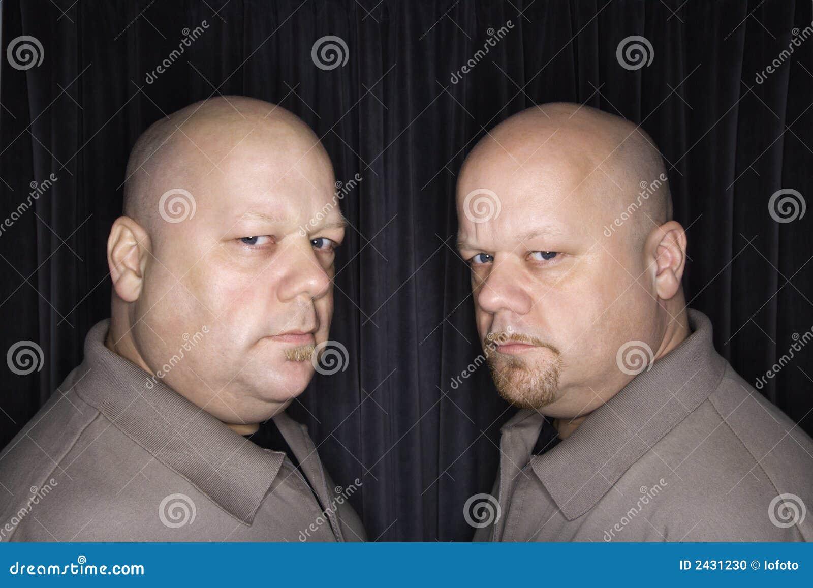 Hombres gemelos calvos.