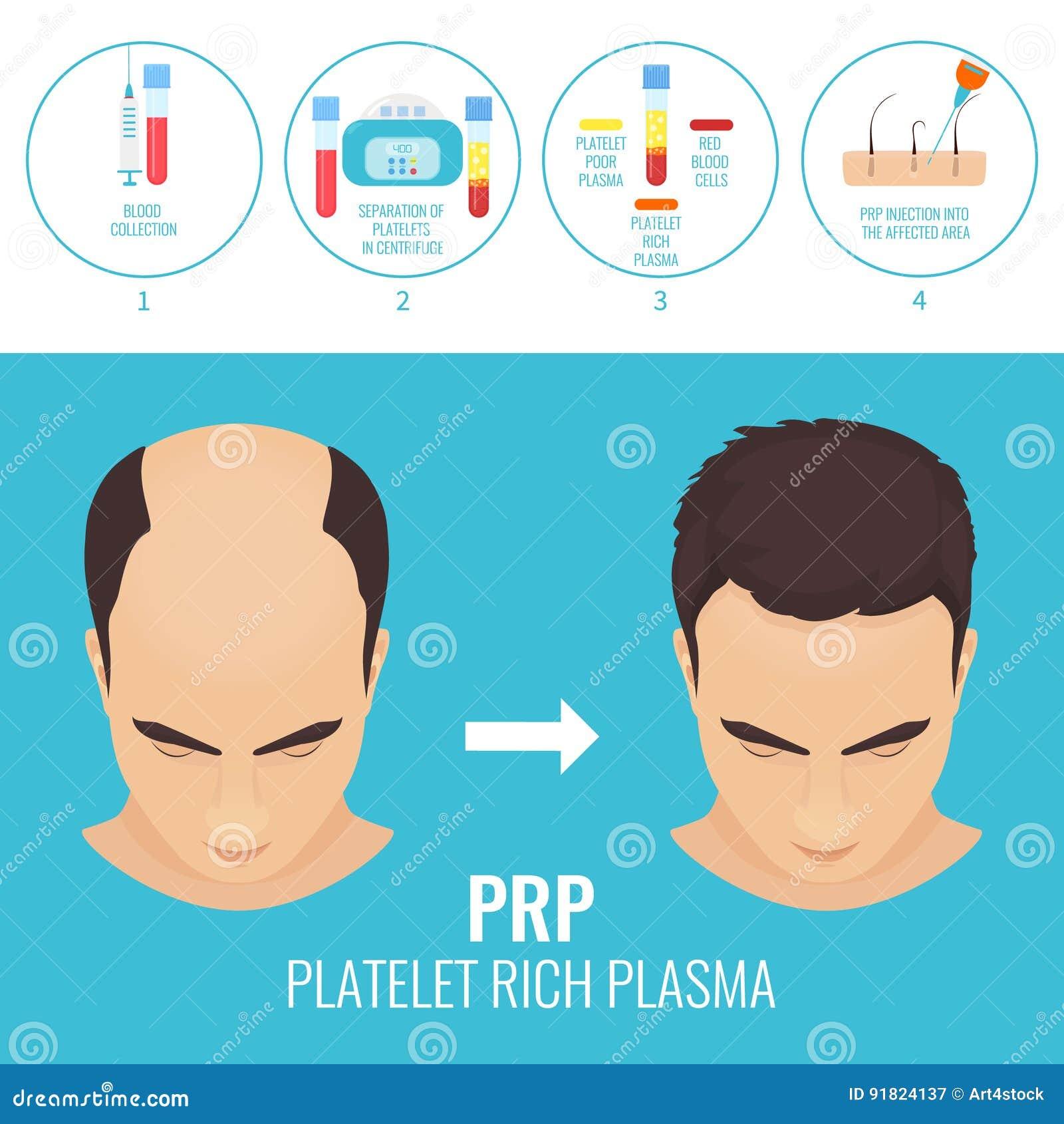 Homem antes e depois da terapia de RPR