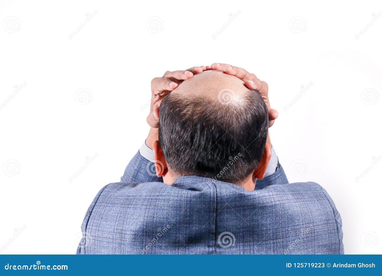 Homem de negócios calvo com sua cabeça na opinião do escalpe de trás com wh