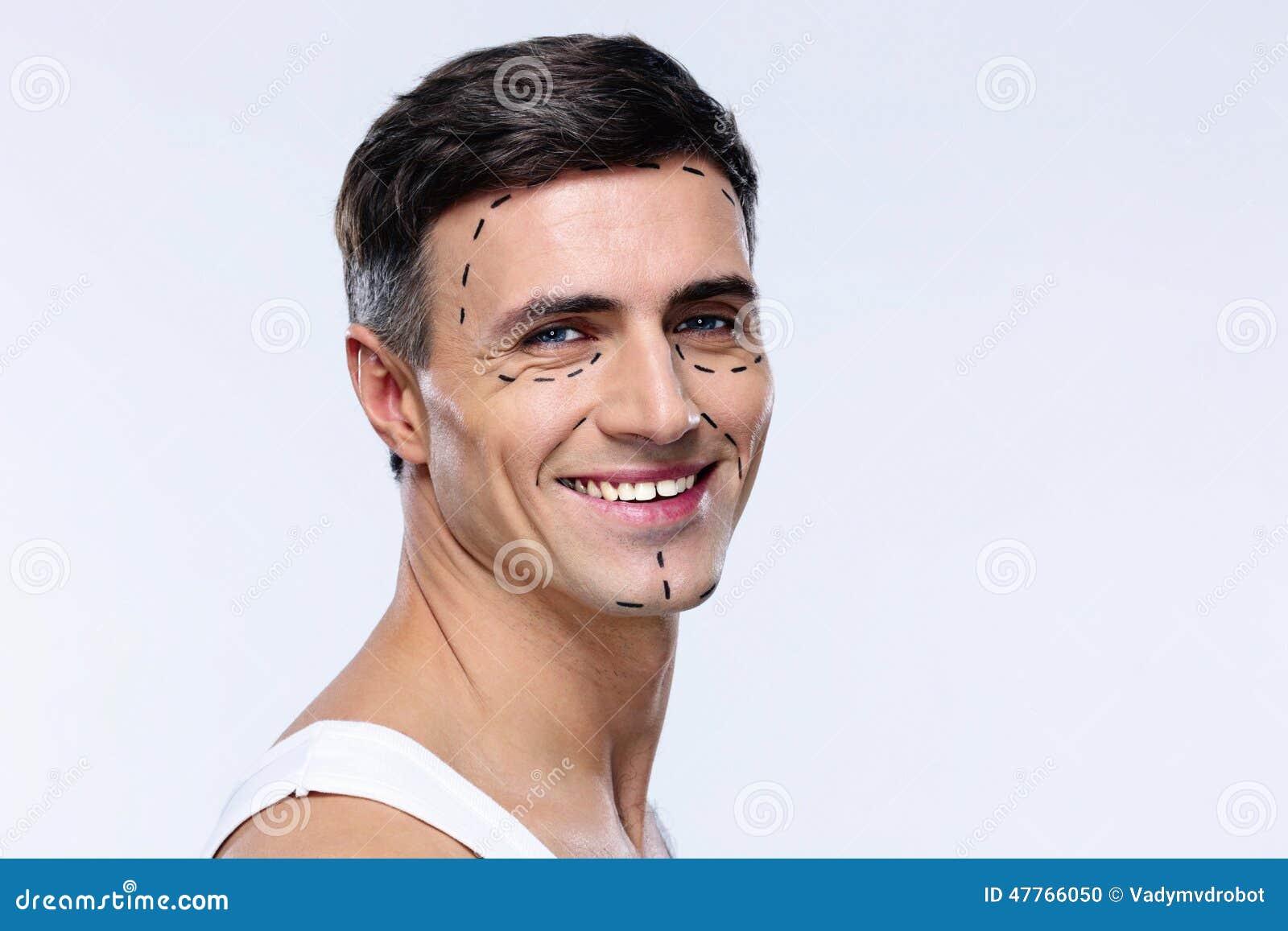 Homem identificado por meio de linhas para a cirurgia plástica
