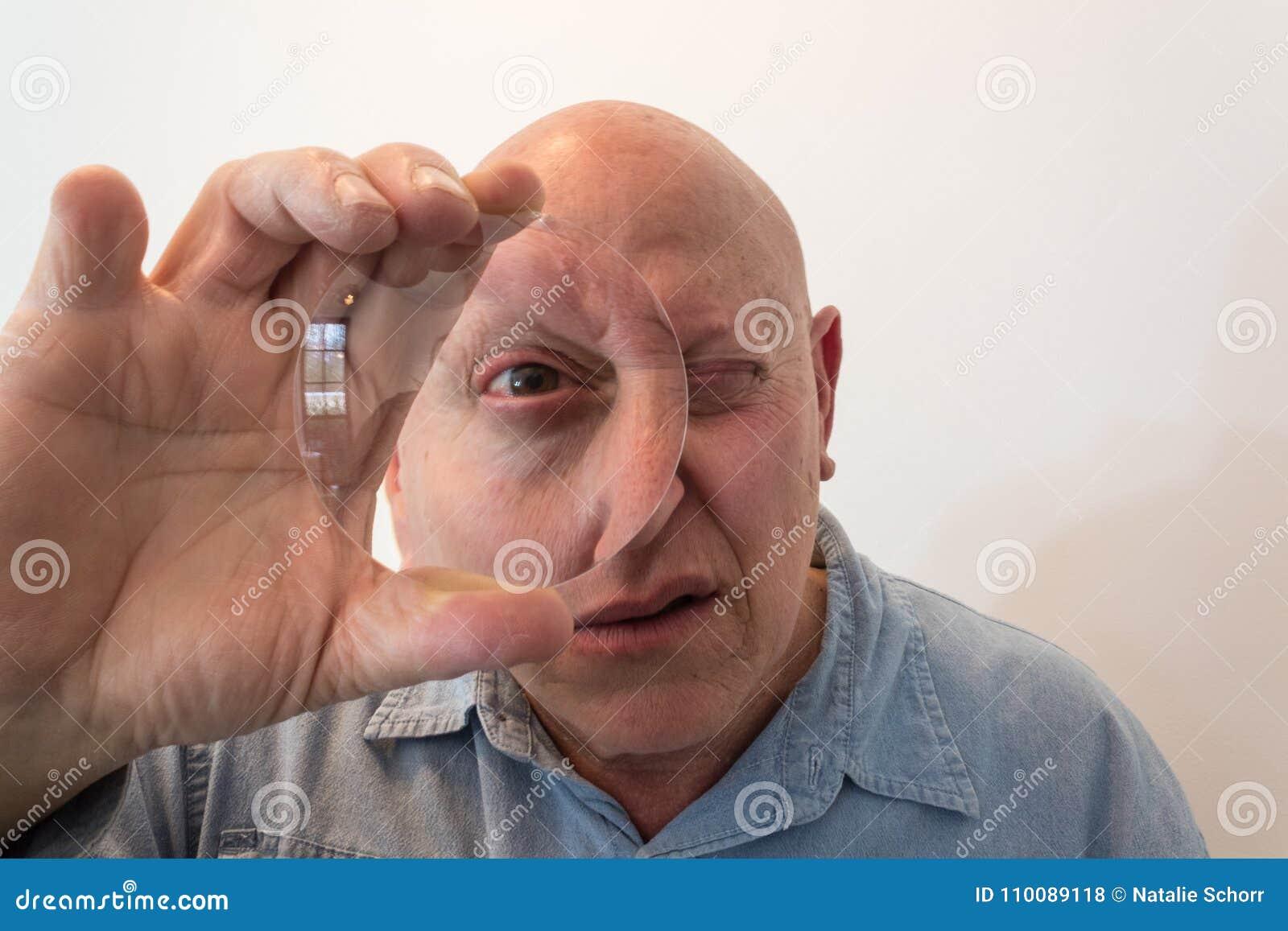 Homem mais idoso que olha através de uma grande lente, distorção, calva, calvície, quimioterapia, câncer, no branco
