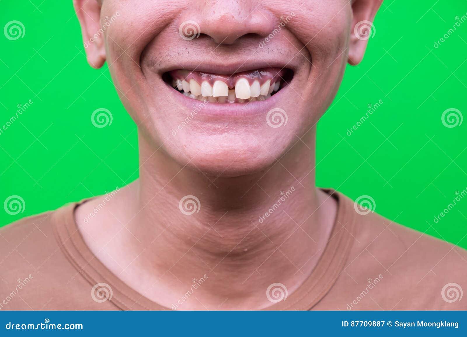 Homme asiatique souriant montrant ses dents sans attrait sur le fond vert