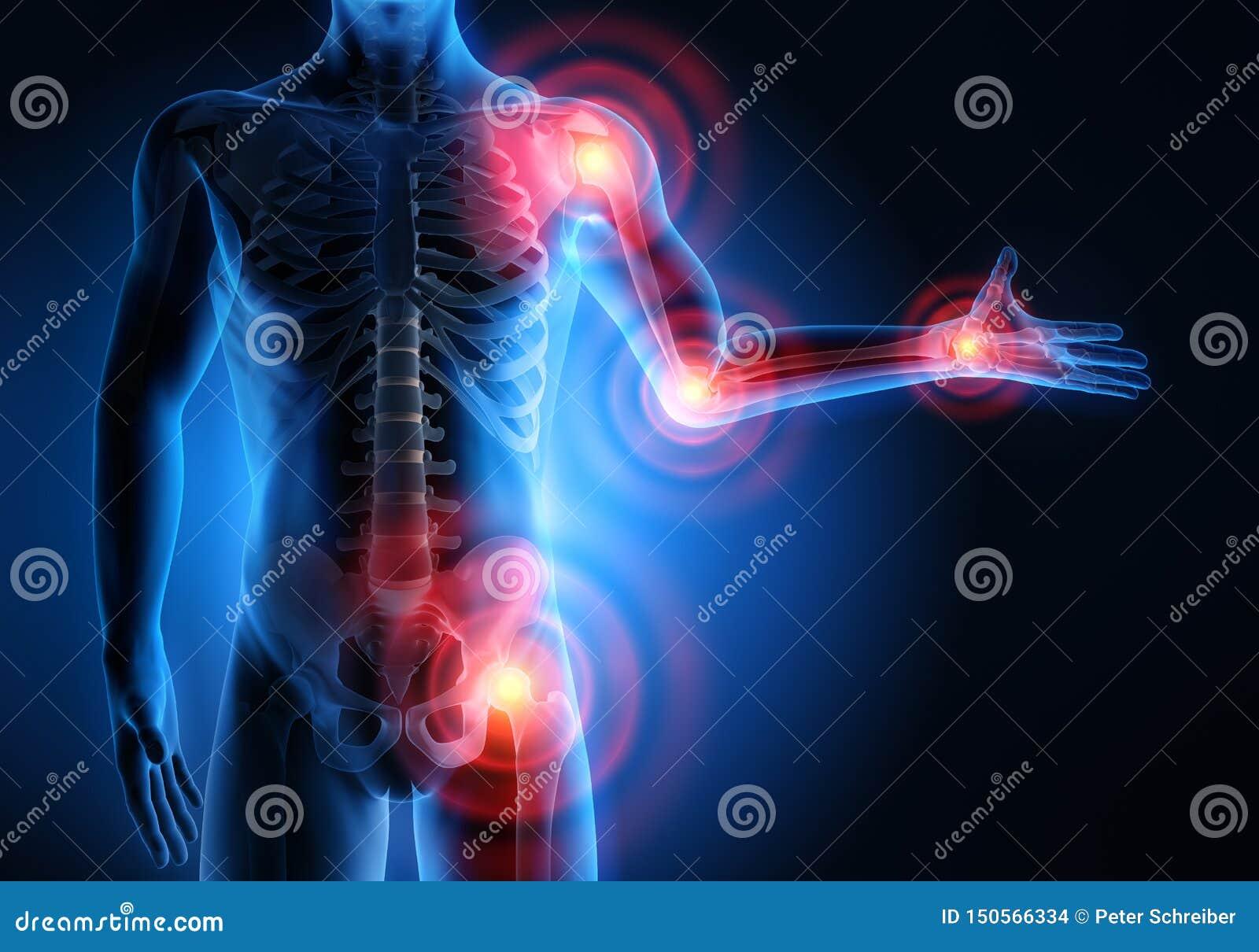 Homme avec des symptômes lourds de douleurs articulaires
