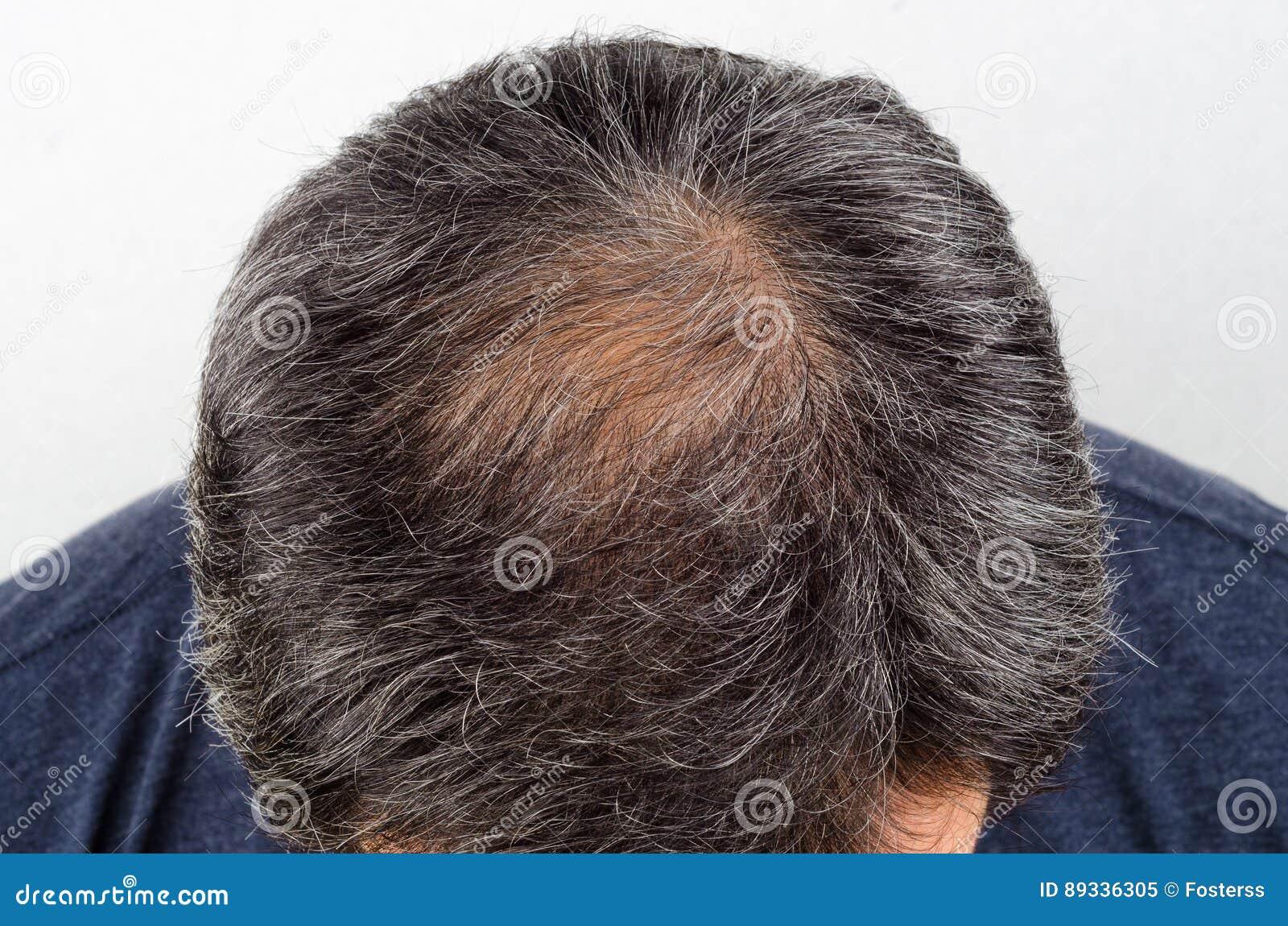 Homme avec la perte des cheveux et les cheveux gris
