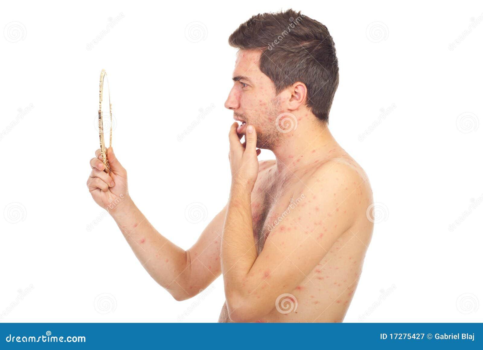 Homme avec la varicelle regardant dans le miroir for Regard dans le miroir