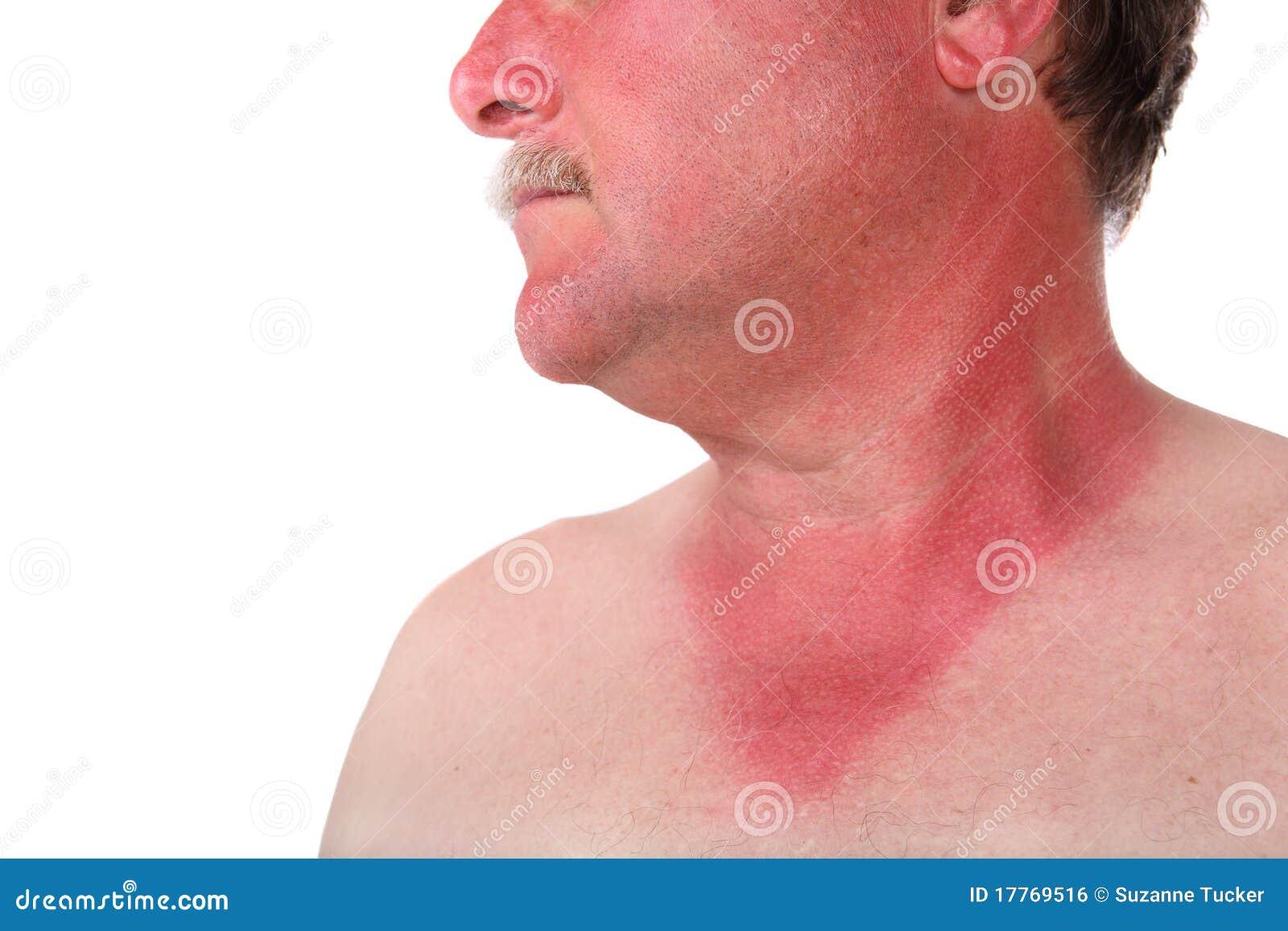 homme avec un coup de soleil photo stock image du douloureux homme 17769516. Black Bedroom Furniture Sets. Home Design Ideas