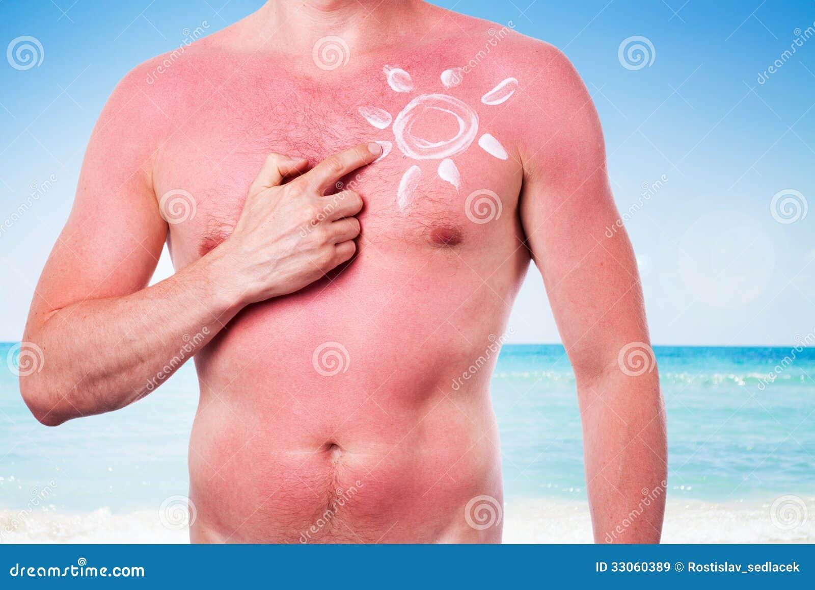 Homme avec un coup de soleil image stock image du plage sant 33060389 - Coup de soleil tache blanche ...