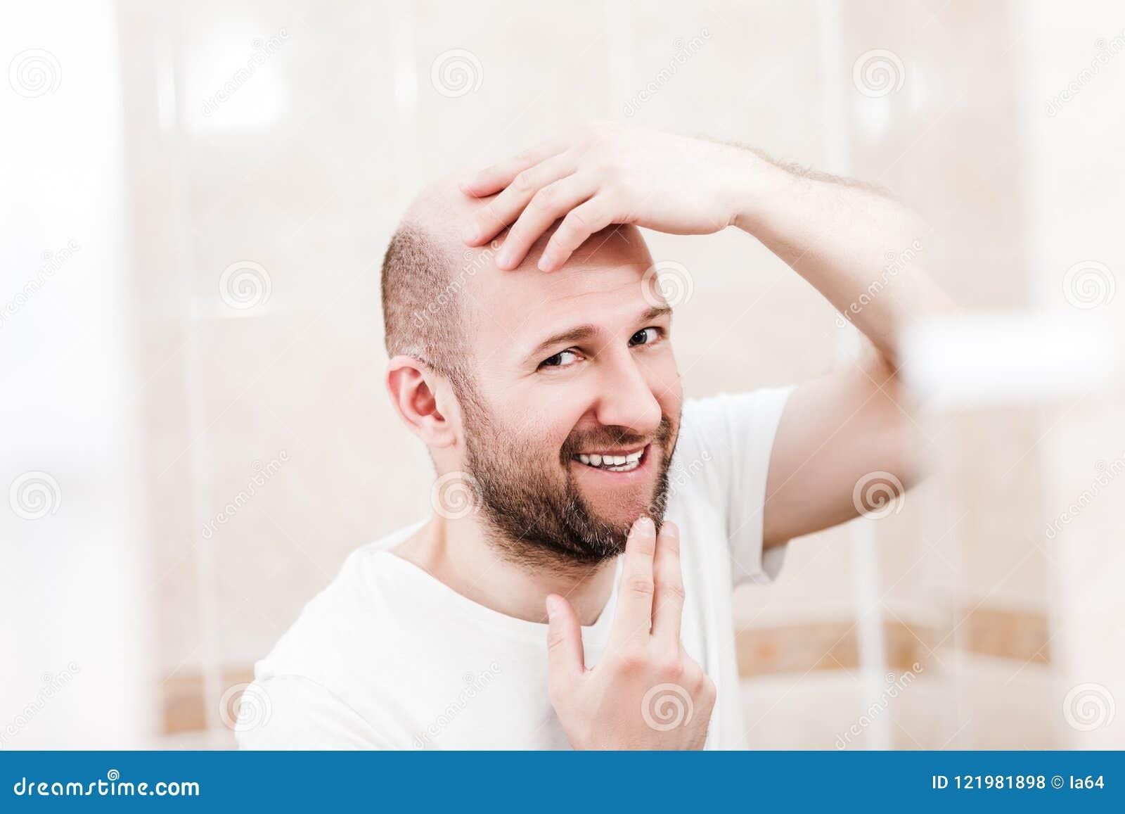 Homme chauve regardant le miroir la calvitie et la perte des cheveux principales