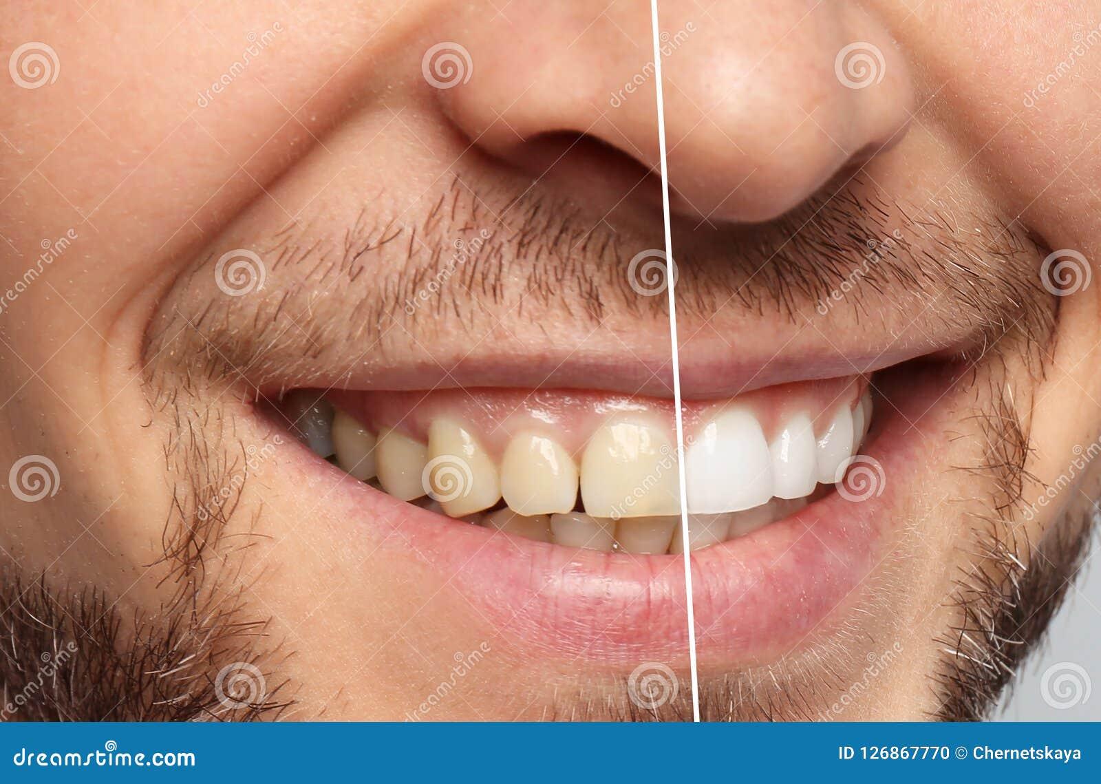 Homme de sourire avant et après des dents