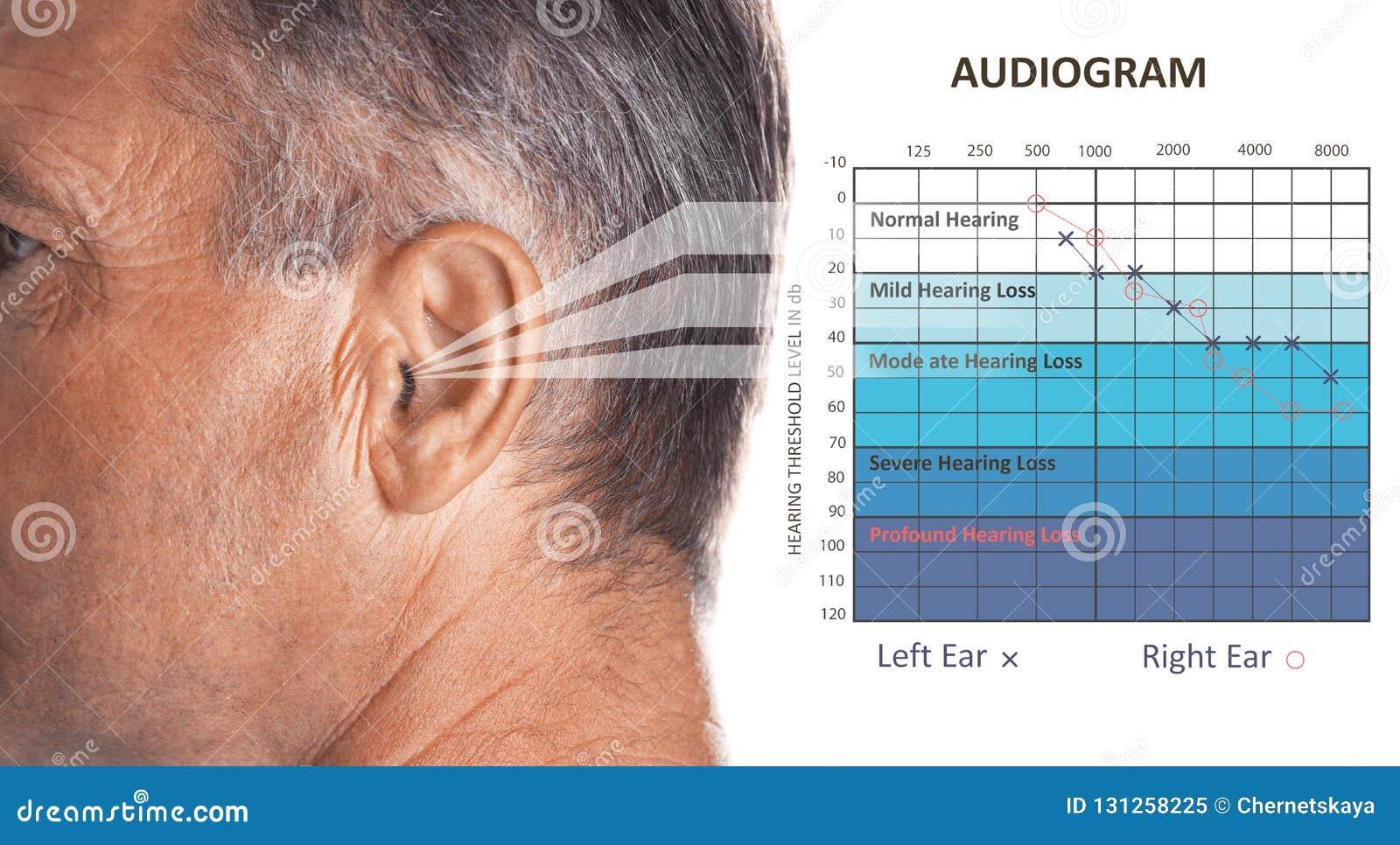 Homme mûr avec le symptôme de la perte d audition