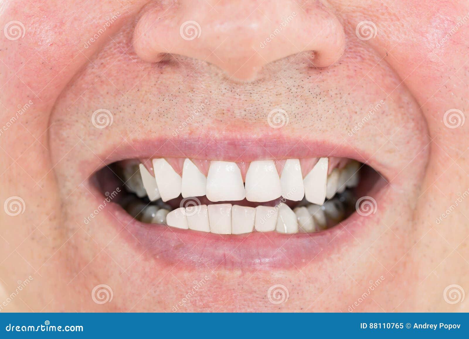 Homme supérieur montrant ses dents