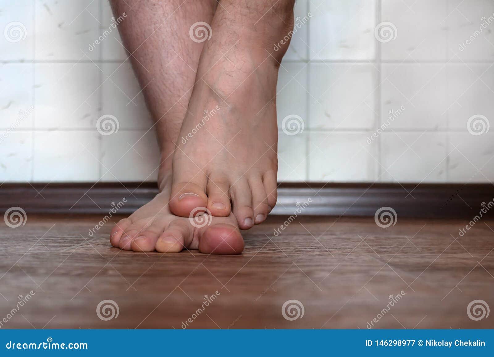 hongos piernas