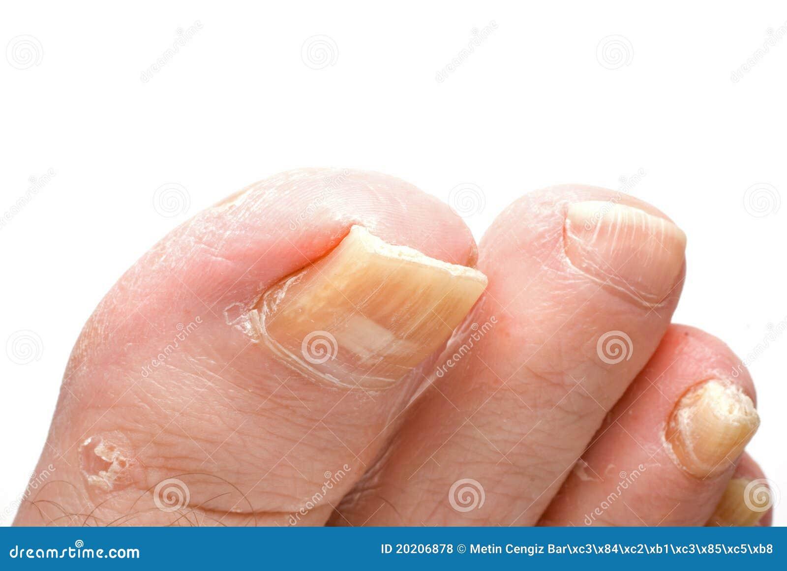 Los hilos del hongo sobre las uñas