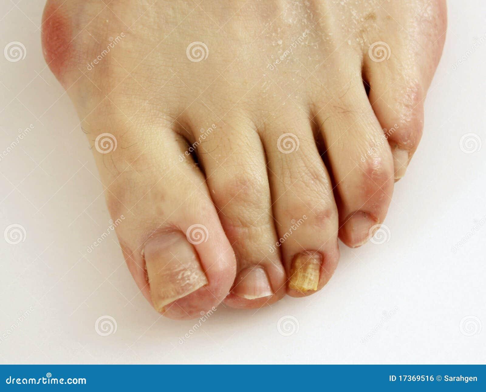Como sanar el hongo con levadura de los pie