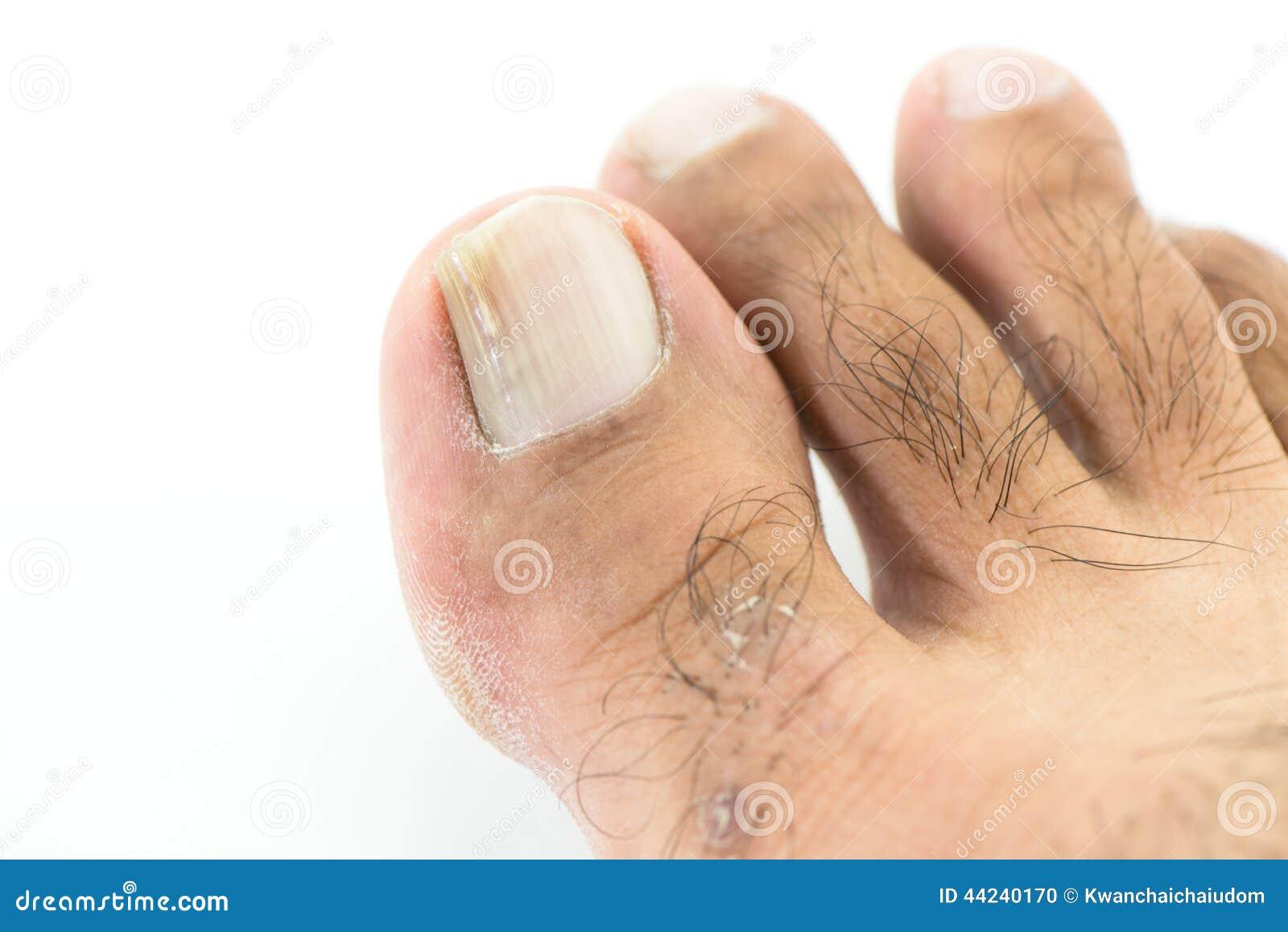 Como curar la fase inicial del hongo de las uñas en las manos