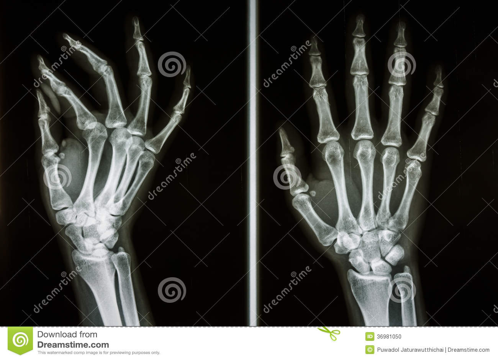 Huesos de manos humanas foto de archivo. Imagen de hueso - 36981050