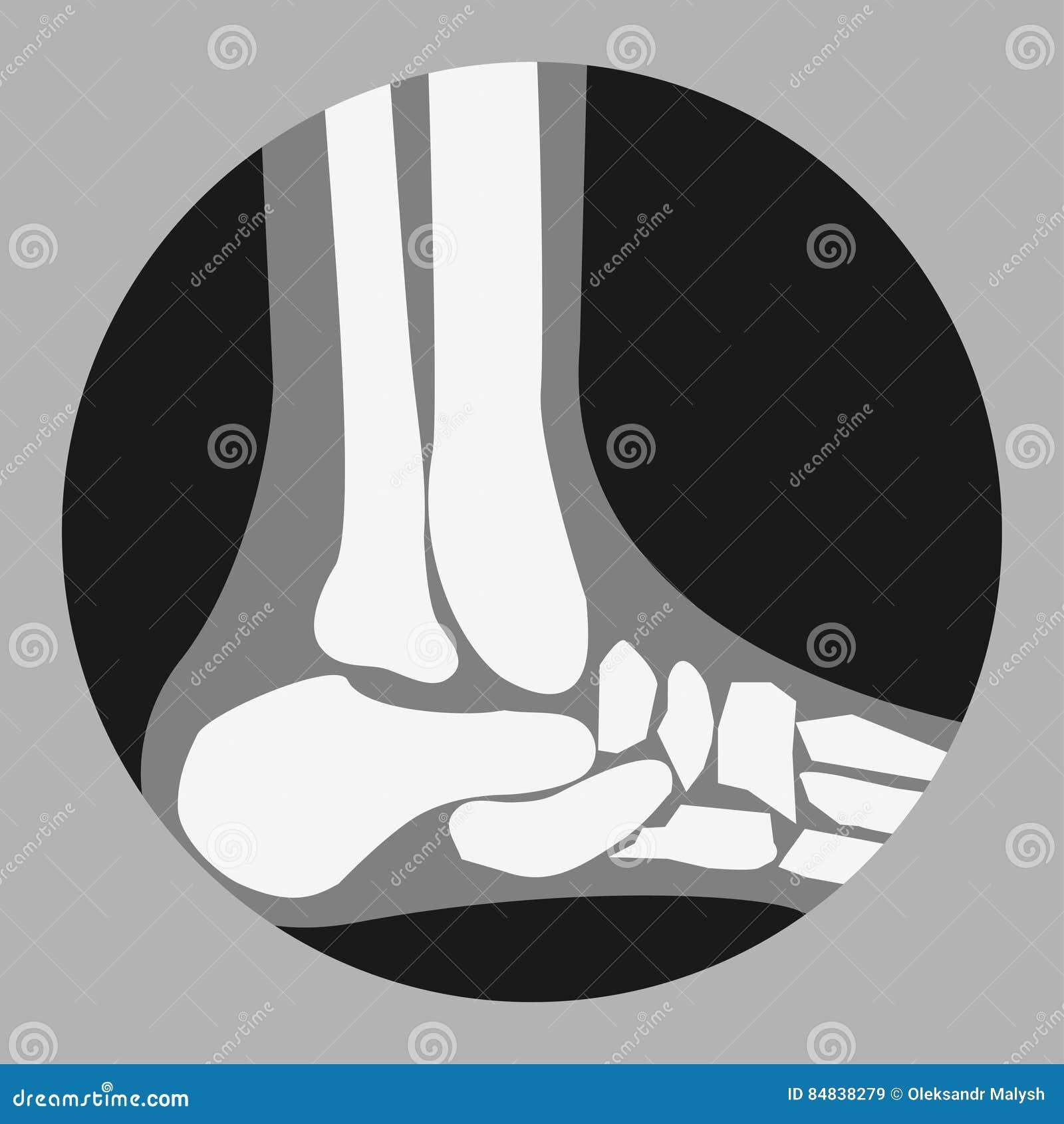Huesos de pie humano ilustración del vector. Ilustración de gráfico ...