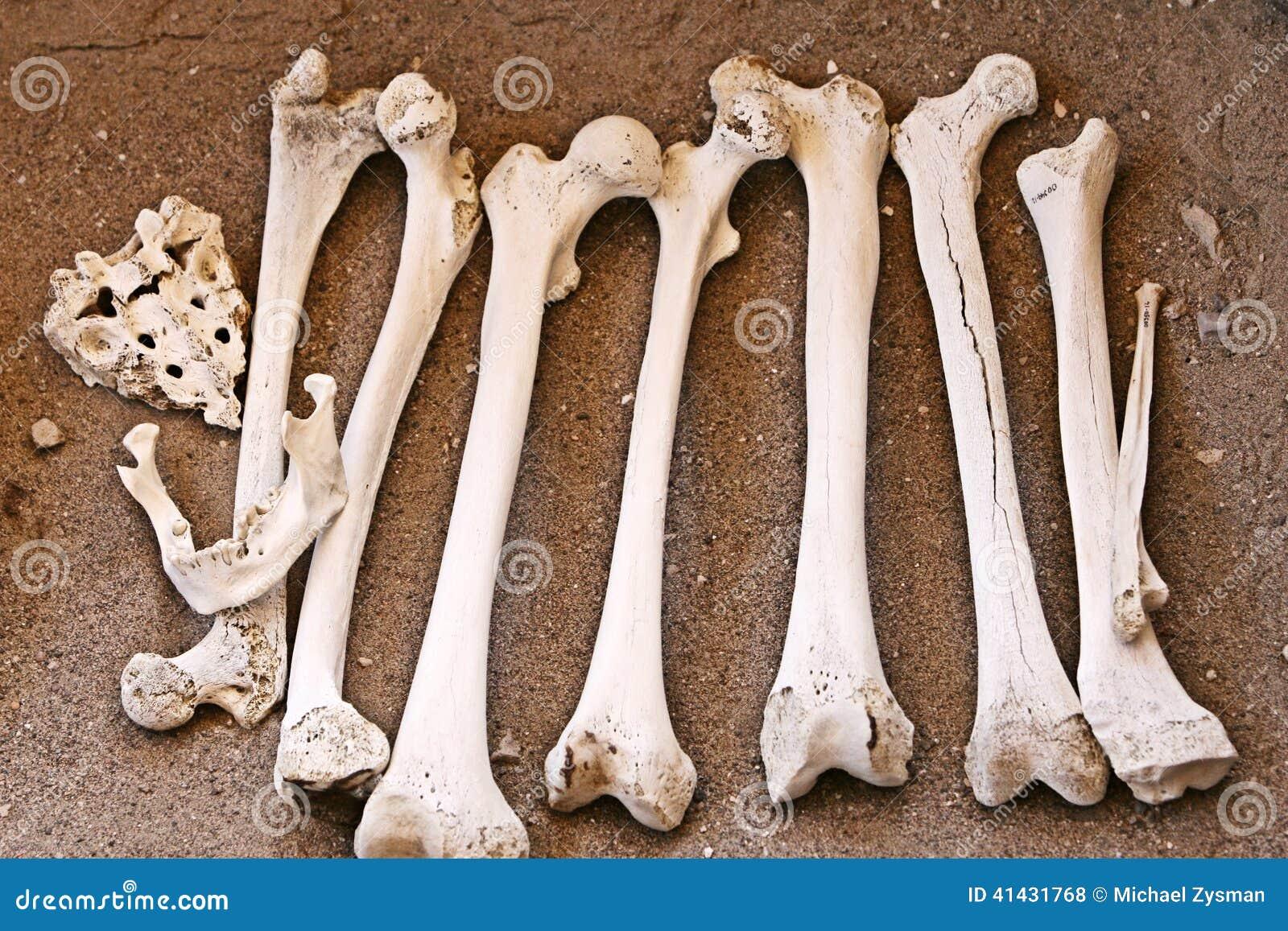Huesos Humanos Antiguos - Fémur Y Mandíbula Foto de archivo - Imagen ...