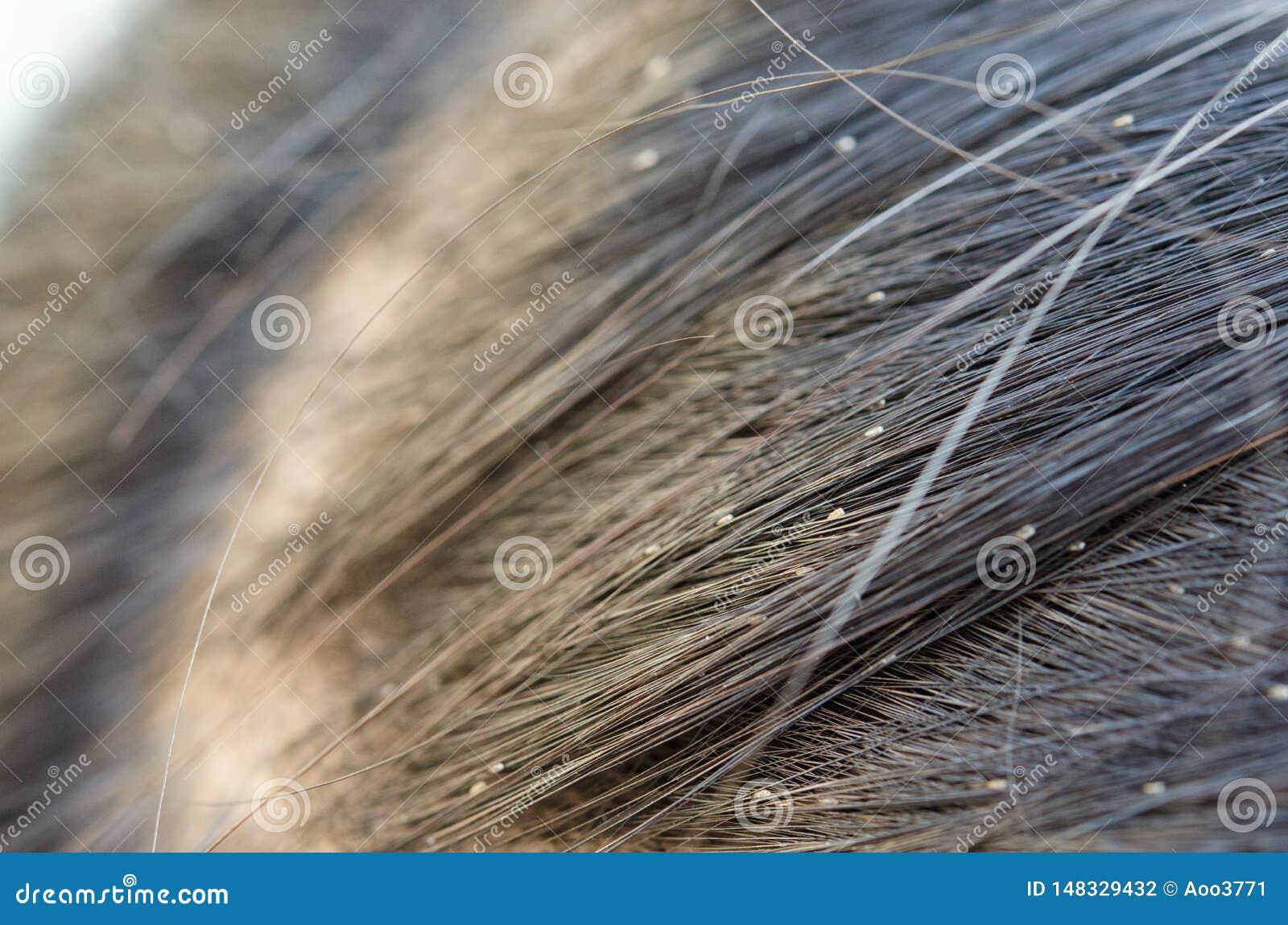 como controlar los piojos en el cabello naturalmente