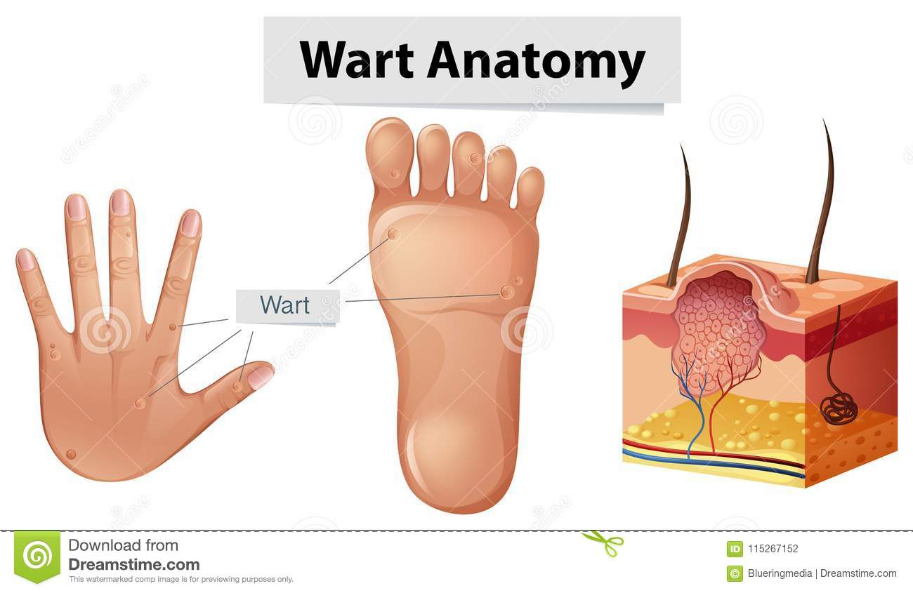 Human Anatomy Wart On Hand And Foot Stock Vector Illustration Of