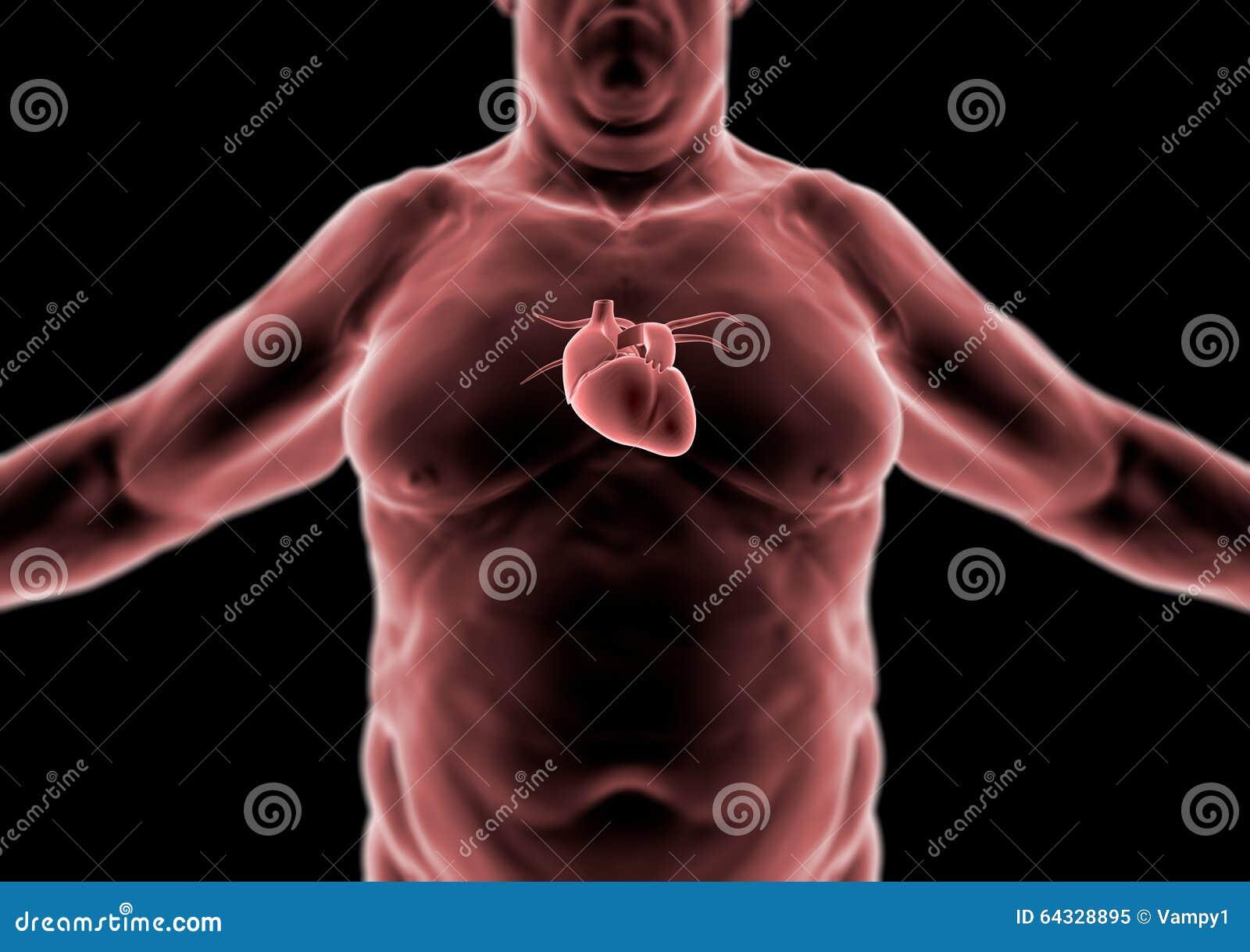 Human Body, Fat Person, Heart Stock Illustration - Illustration of ...