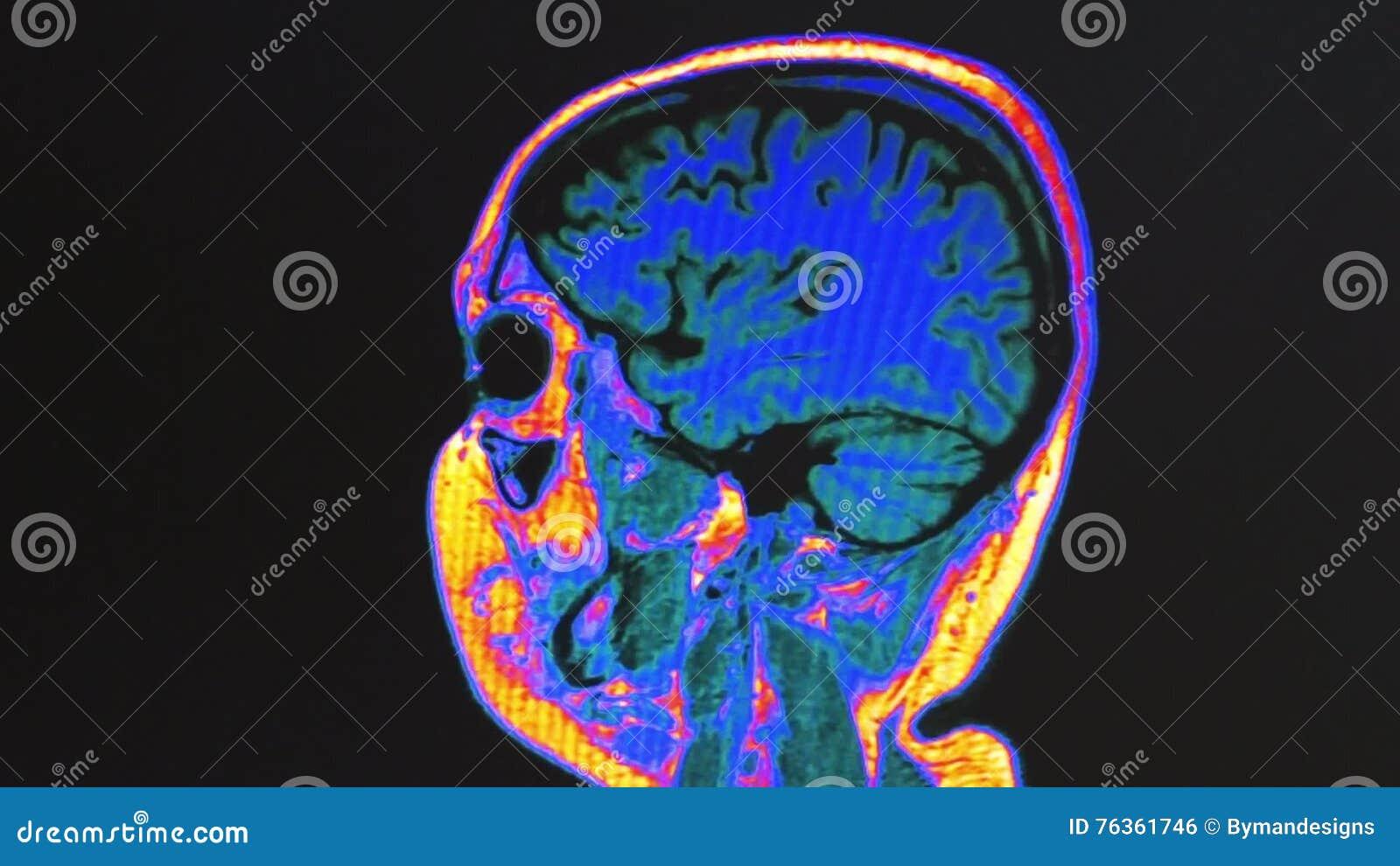 Human brain MRI scan stock footage. Illustration of brain - 76361746