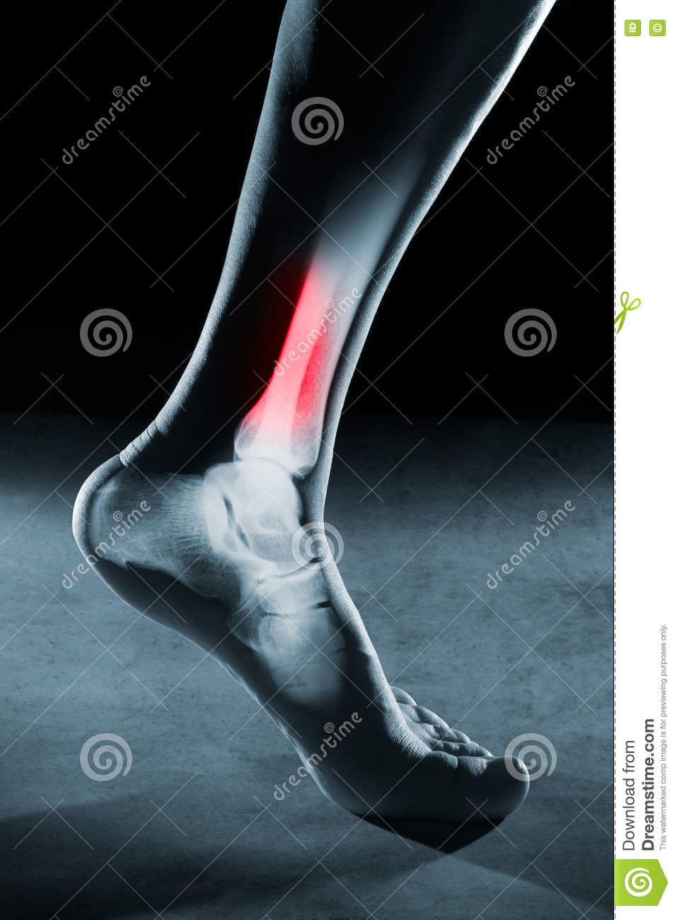 Human foot ankle and leg in x-ray