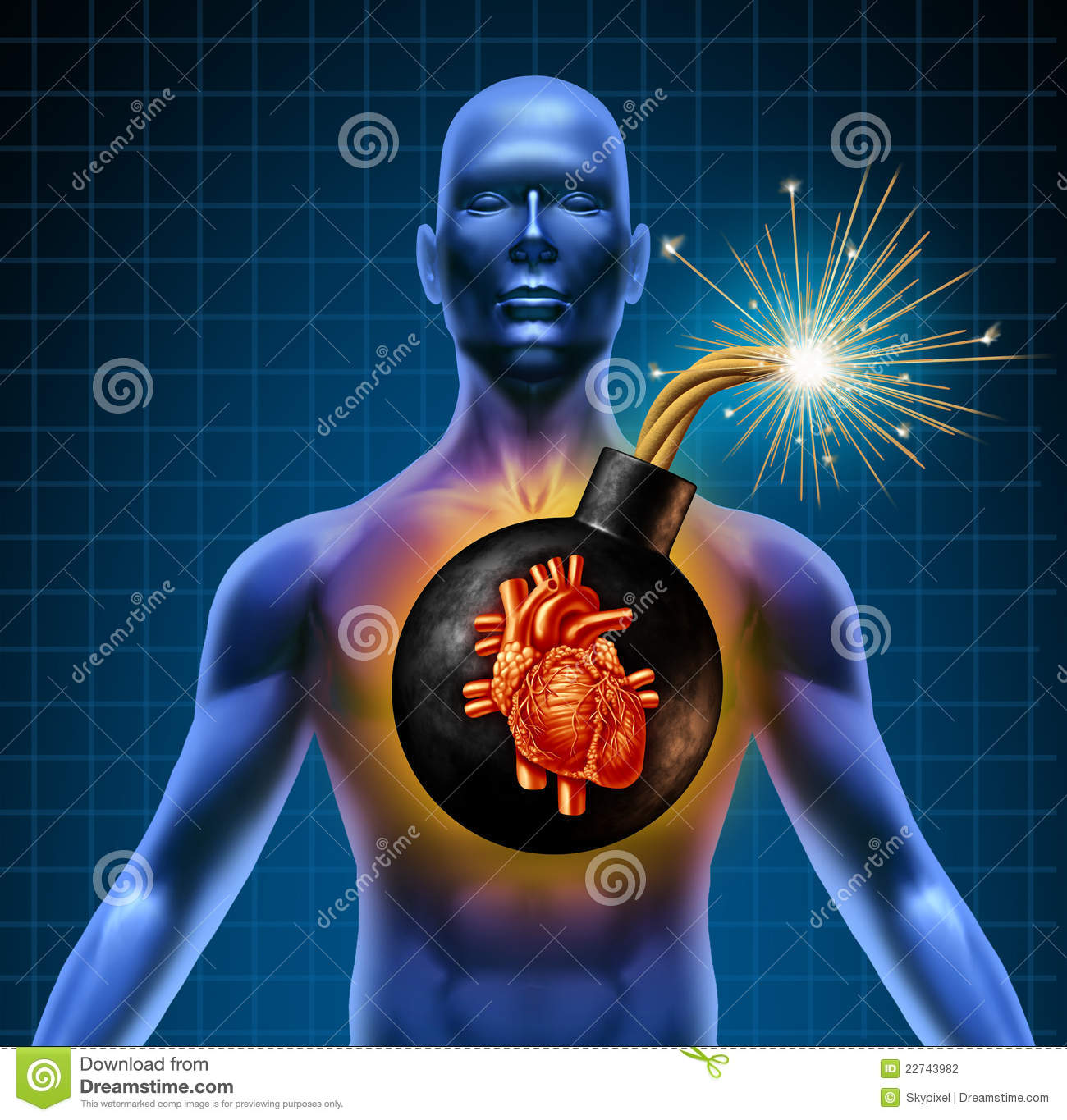 Human heart attack time bomb stock illustration illustration of human heart attack time bomb ccuart Choice Image