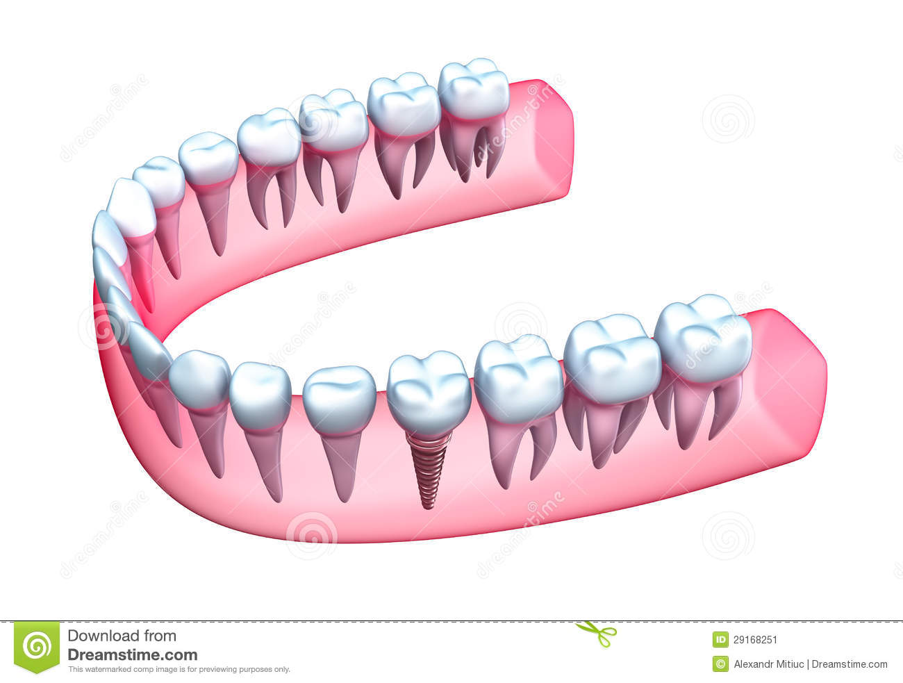 Human Jaw Model With Teeth And Implant Stock Illustration