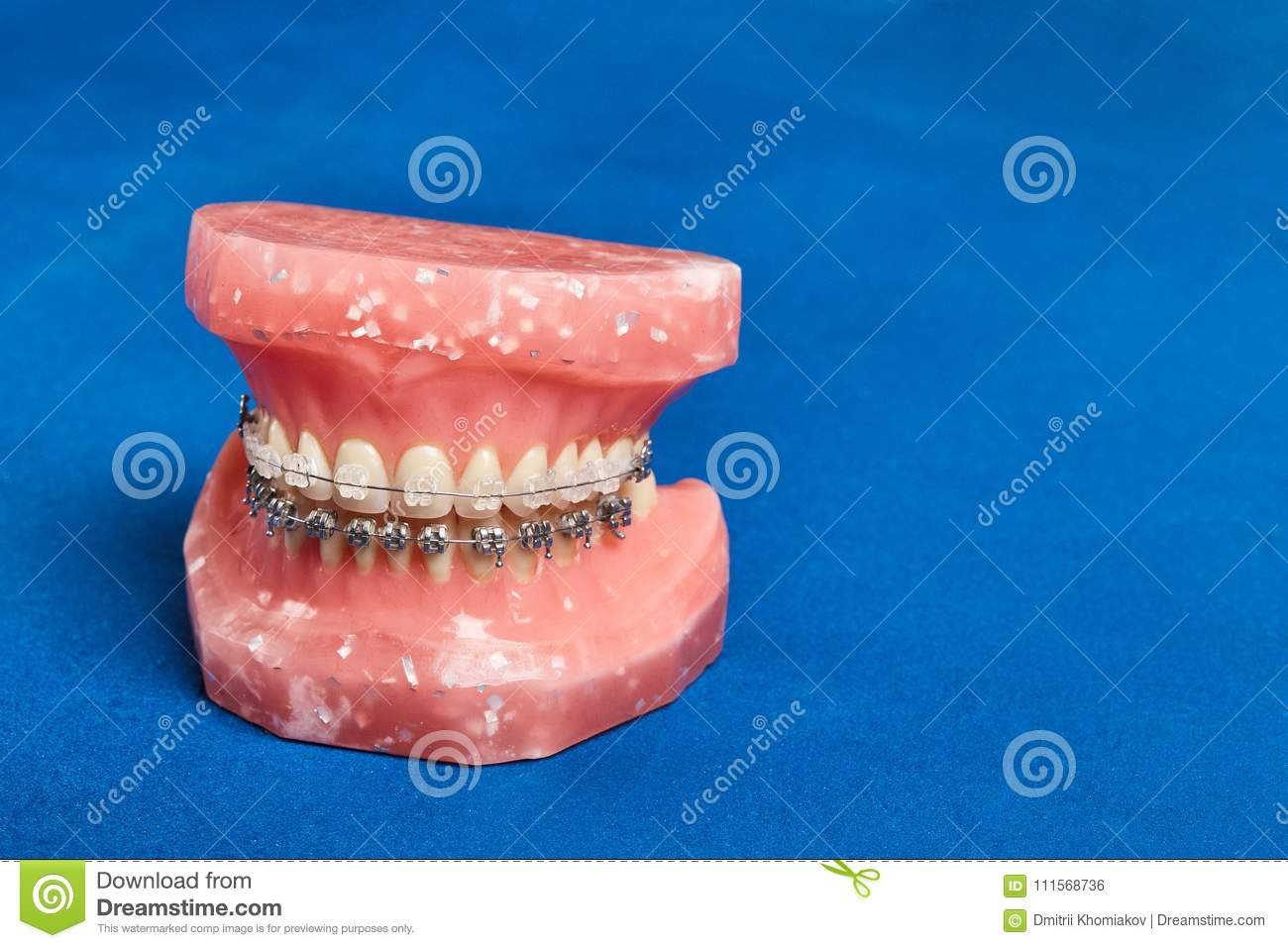 Human Jaw Or Teeth Model With Metal Wired Dental Braces Stock Photo ...