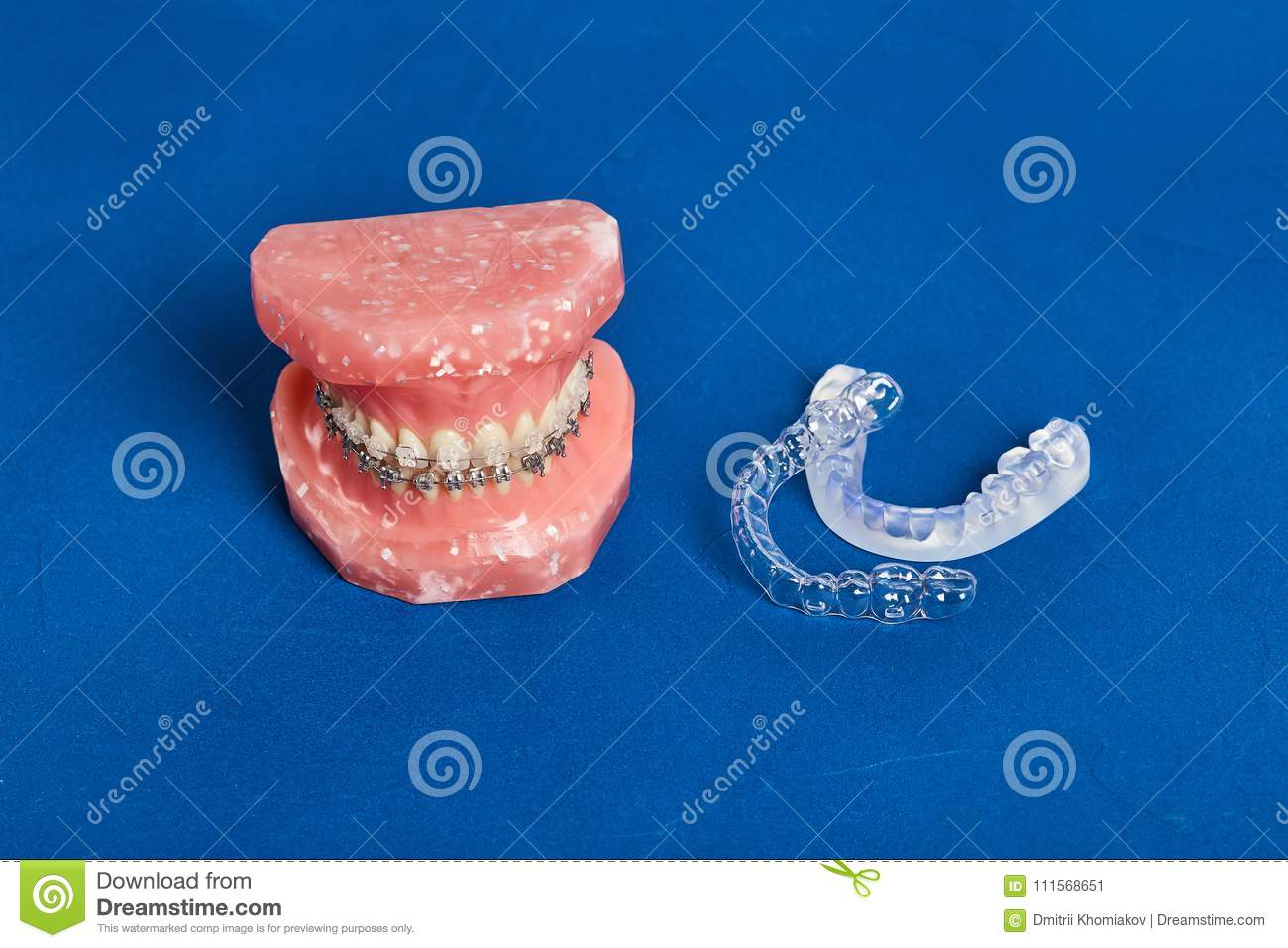 Human Jaw Or Teeth Model With Metal Wired Dental Braces Stock Image ...