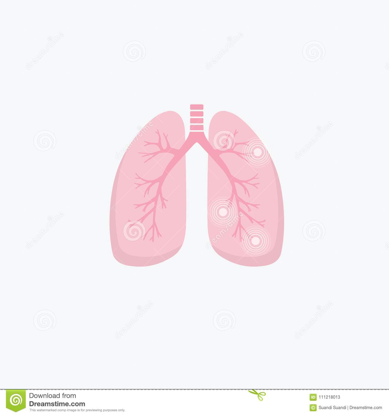 Cellular Differences in Asthma Identified in First Lung ... |Human Lungs With Asthma