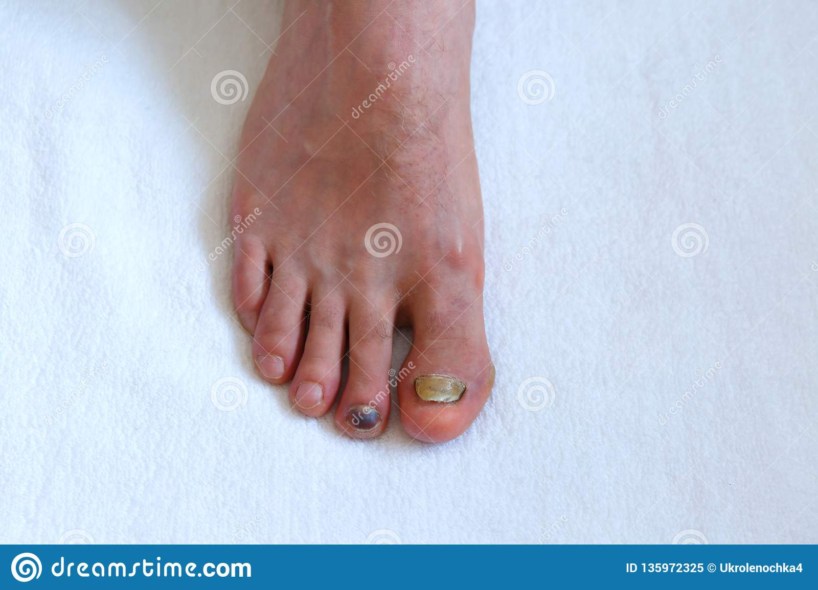 Human Male Foot With Bruised Black On Toe Nails On White Background ...