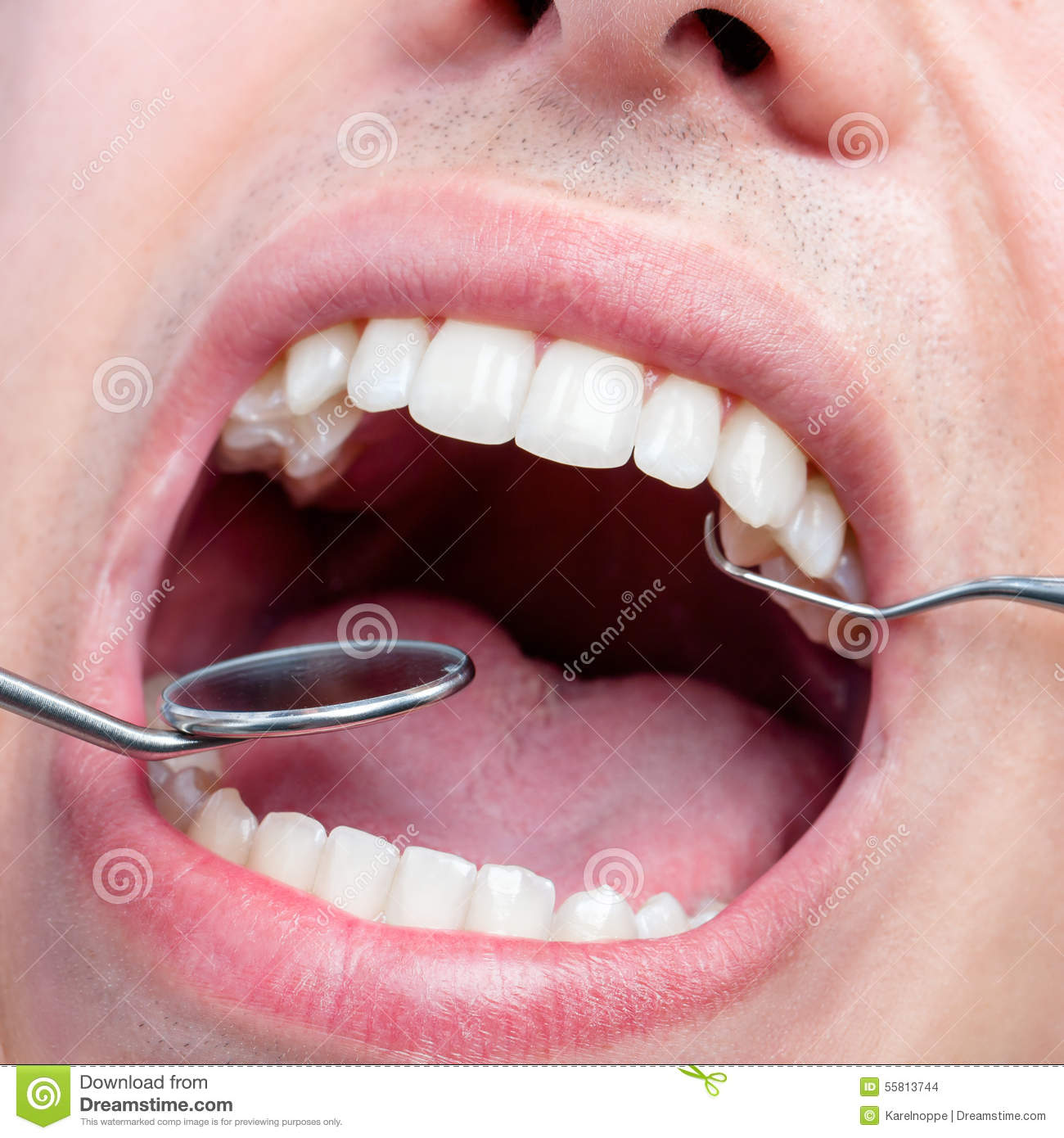 Human Male Mouth Showing Teeth With Dental Hatchet And ...