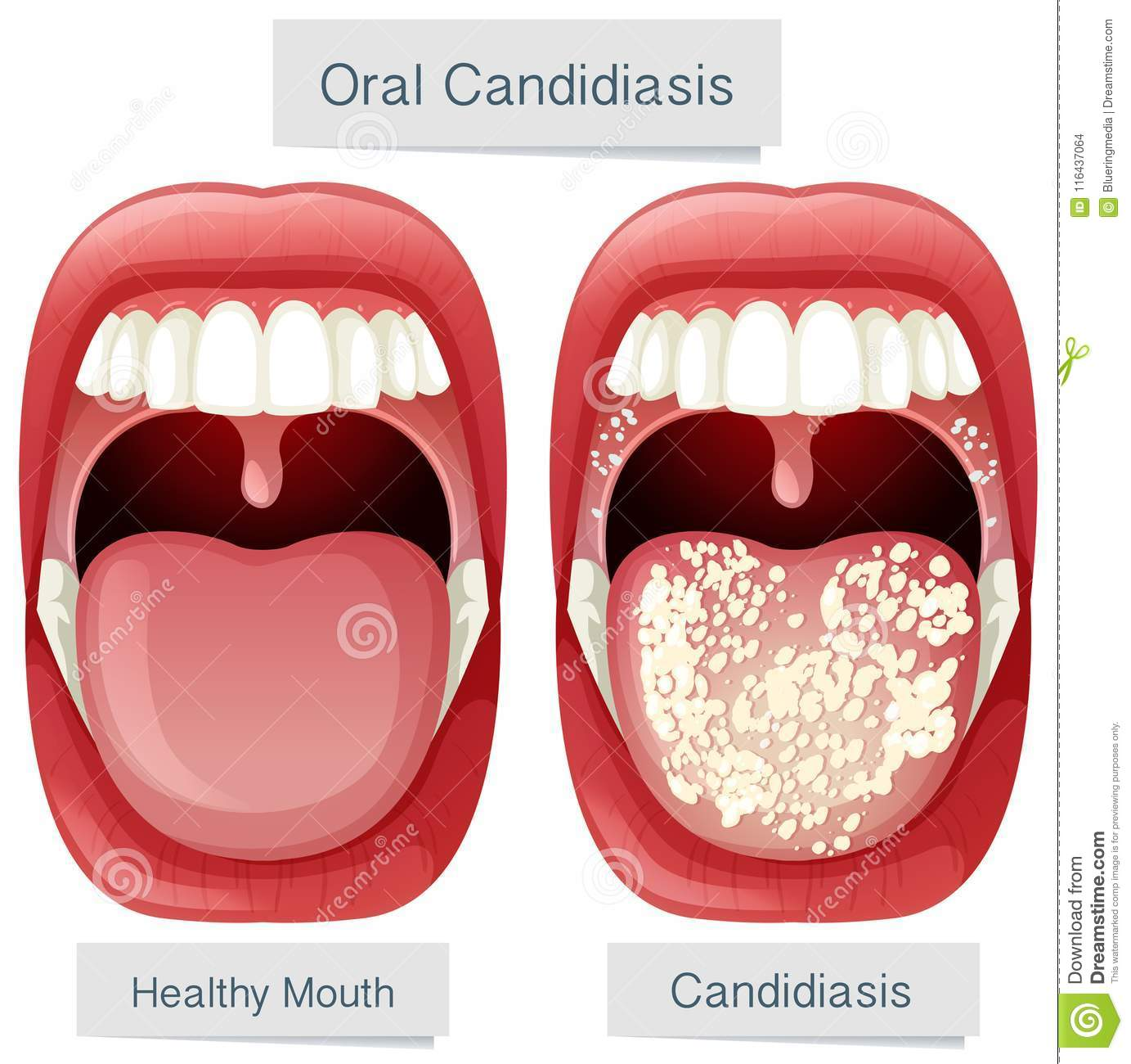 Human Mouth Anatomy Oral Candidiasis Stock Vector Illustration Of